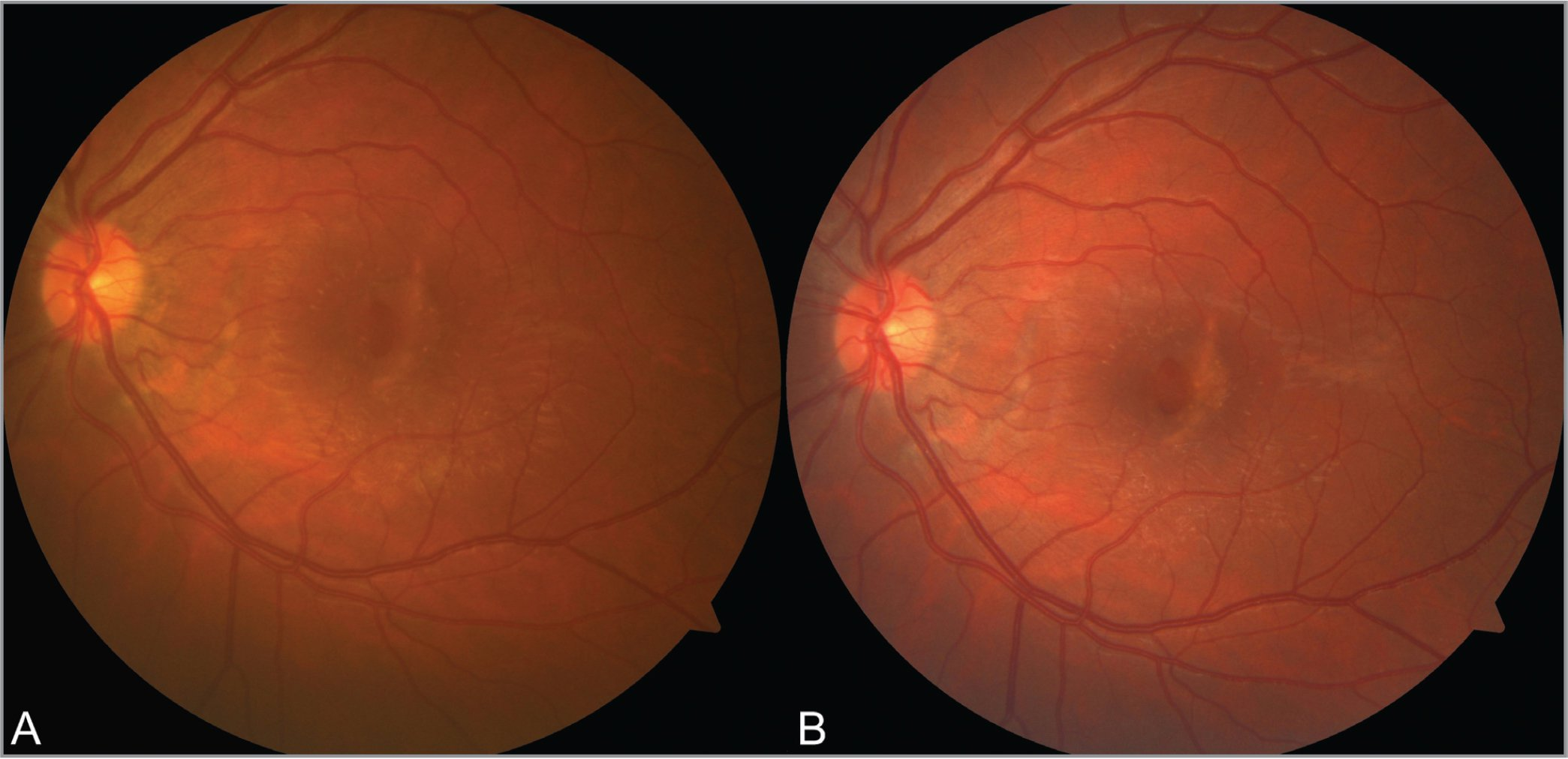 Color fundus photographs of a 32-year-old male 5 months (A) and 8 months after blunt ocular trauma. There is an inner lamellar macular hole centrally and grey crescentic scars in the parafoveal and peripapillary regions.