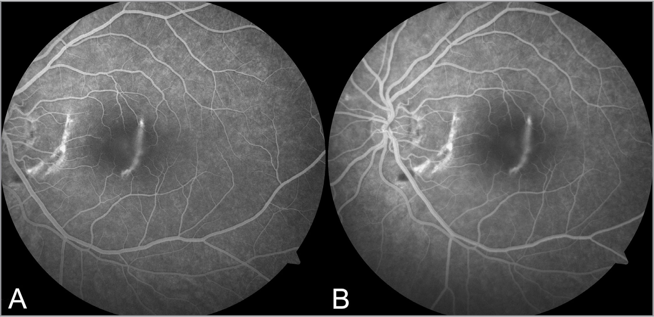 Late arteriovenous (A: 30 seconds) and recirculation (B: 1 minute and 38 seconds) phase fluorescein angiography of the left eye at presentation show crescentic areas of hyperfluorescent staining corresponding to choroidal rupture. There is minimal dye leakage into the subretinal space overlying the nonconforming focal choroidal excavation.