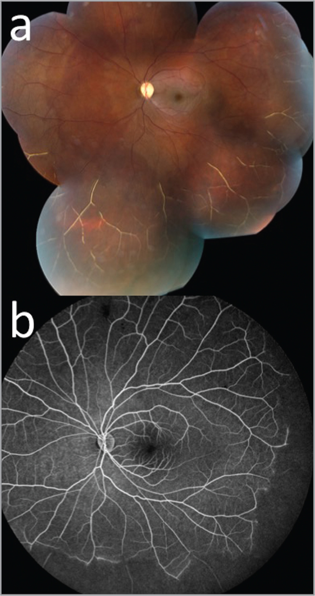 Fundus photo (a) and fluorescein angiography (b) of a 22-year-old male with sickle cell retinopathy with a history of trauma to the left eye.
