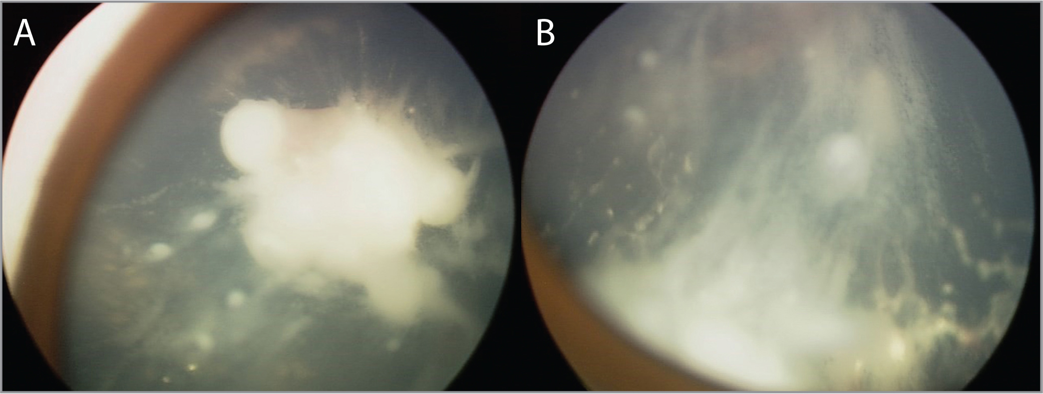 Regressing endophytic tumor with significant vitreous seeds 2 weeks after intra-arterial chemotherapy.
