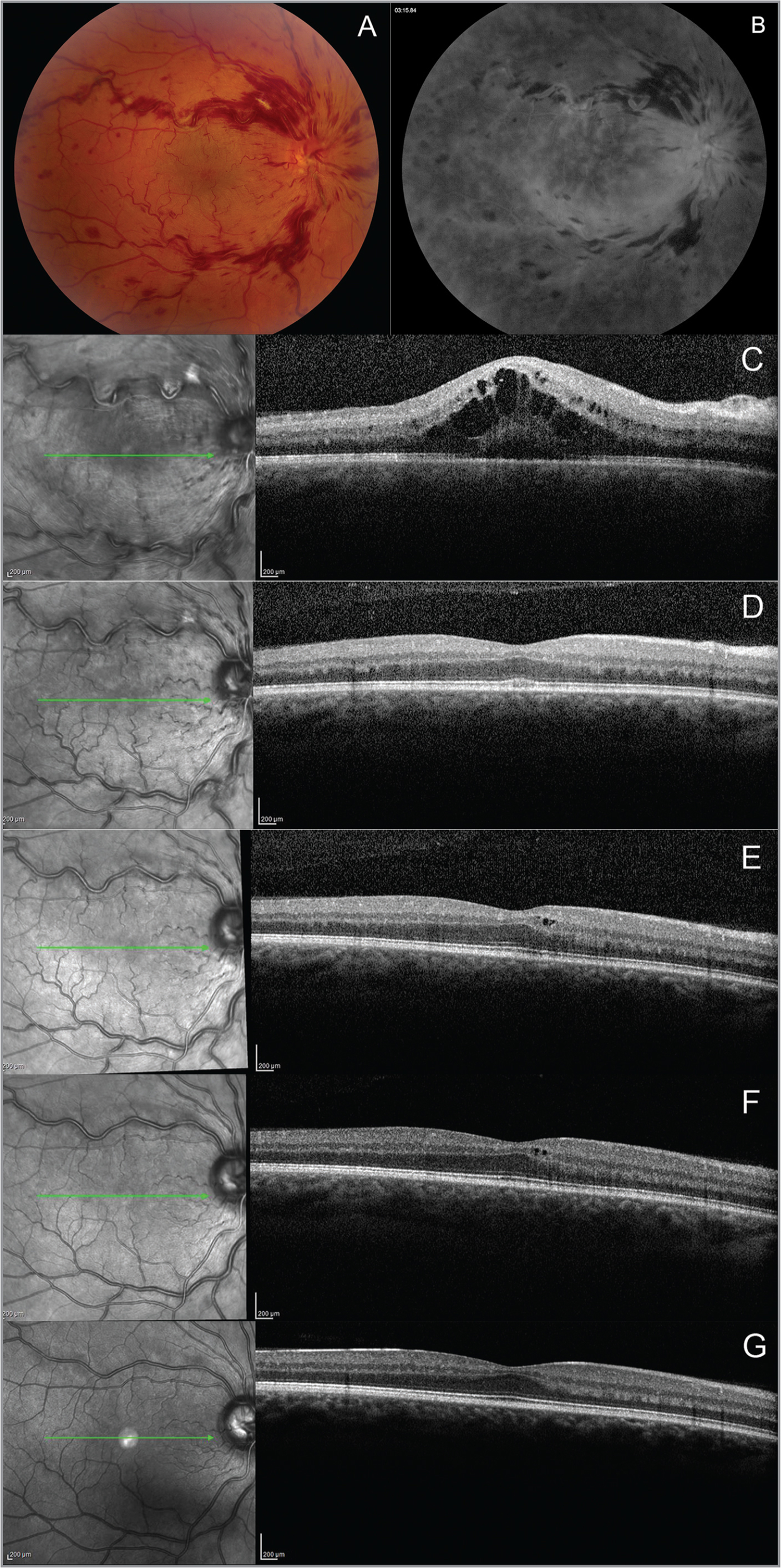 A representative case in a young patient with central retinal vein occlusion (CRVO) with anti-vascular endothelial growth factor treatment. (A) Color photography demonstrates CRVO changes in a treatment-naïve 31-year-old male patient (Case 13), with engorged retinal veins, extensive retinal hemorrhages, and macular edema. (B) Fluorescein angiography shows staining along the large retinal veins, with hypofluorescence due to masking by retinal hemorrhages. (C) Baseline optical coherence tomography (OCT) reveals macular edema before treatment, with intraretinal and subretinal fluid. (D to G) OCT images demonstrate resolution of macular edema and decreased central retinal thickness at 1-month, 3-month, 6-month, and 12-month follow-up visits following intravitreal ranibizumab injections.