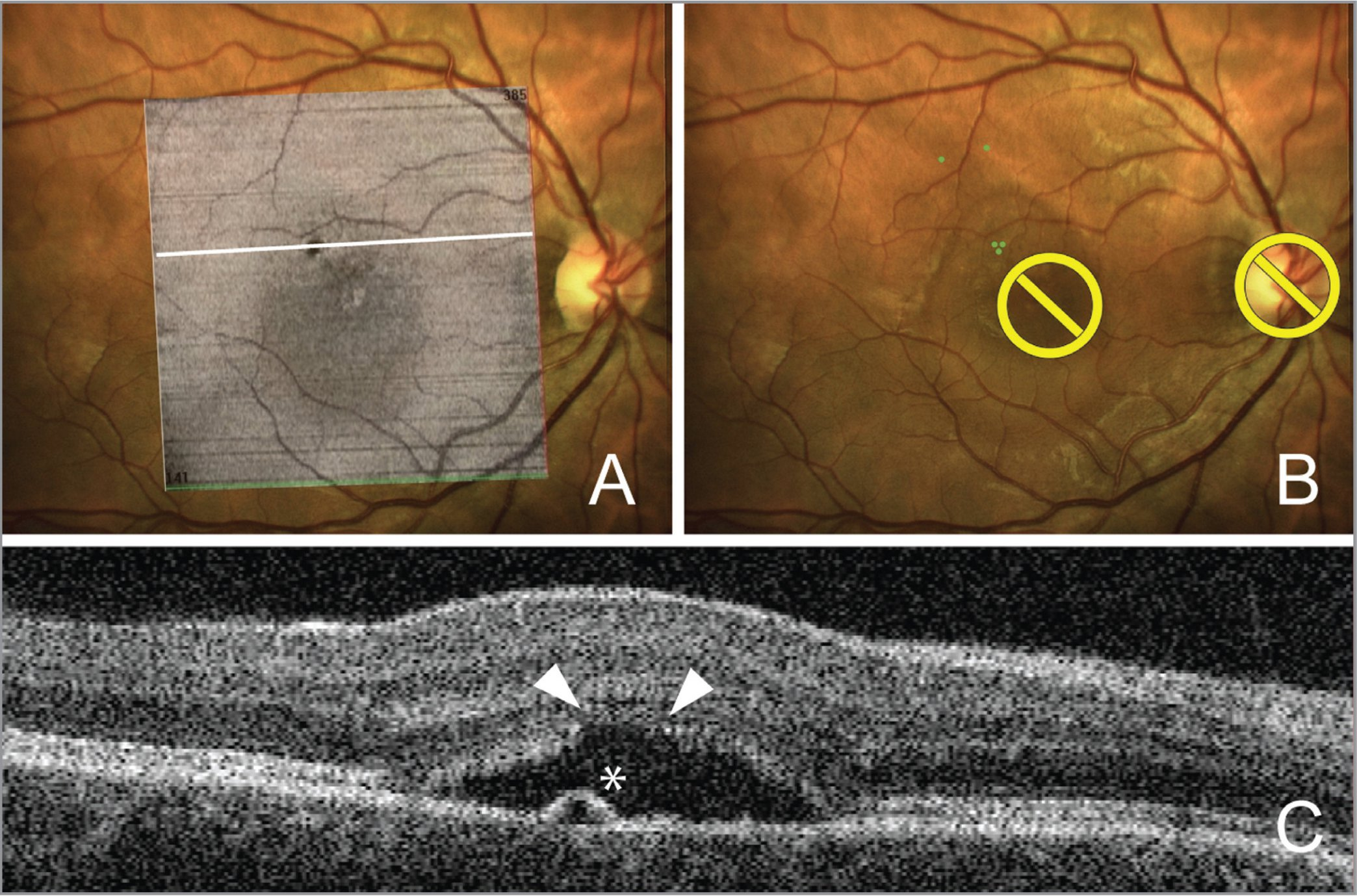 Representative example of fluorescein angiography (FA)-free optical coherence tomography (OCT)-guided navigated focal laser photocoagulation of a leakage point without FA (Case 8). (A) En face image with a noted presumed leakage point superimposed on the baseline fundus image. (B) Focal laser photocoagulation treatment plan included three laser spot marks placed at the pigment epithelium detachment (PED). The white line represents the position of the cross-sectional OCT scan. (C) Cross-sectional OCT scan demonstrated a focal PED (asterisk) in the upper part of the neurosensory detachment area and photoreceptor outer segments layer thinning (arrowheads) above this PED.