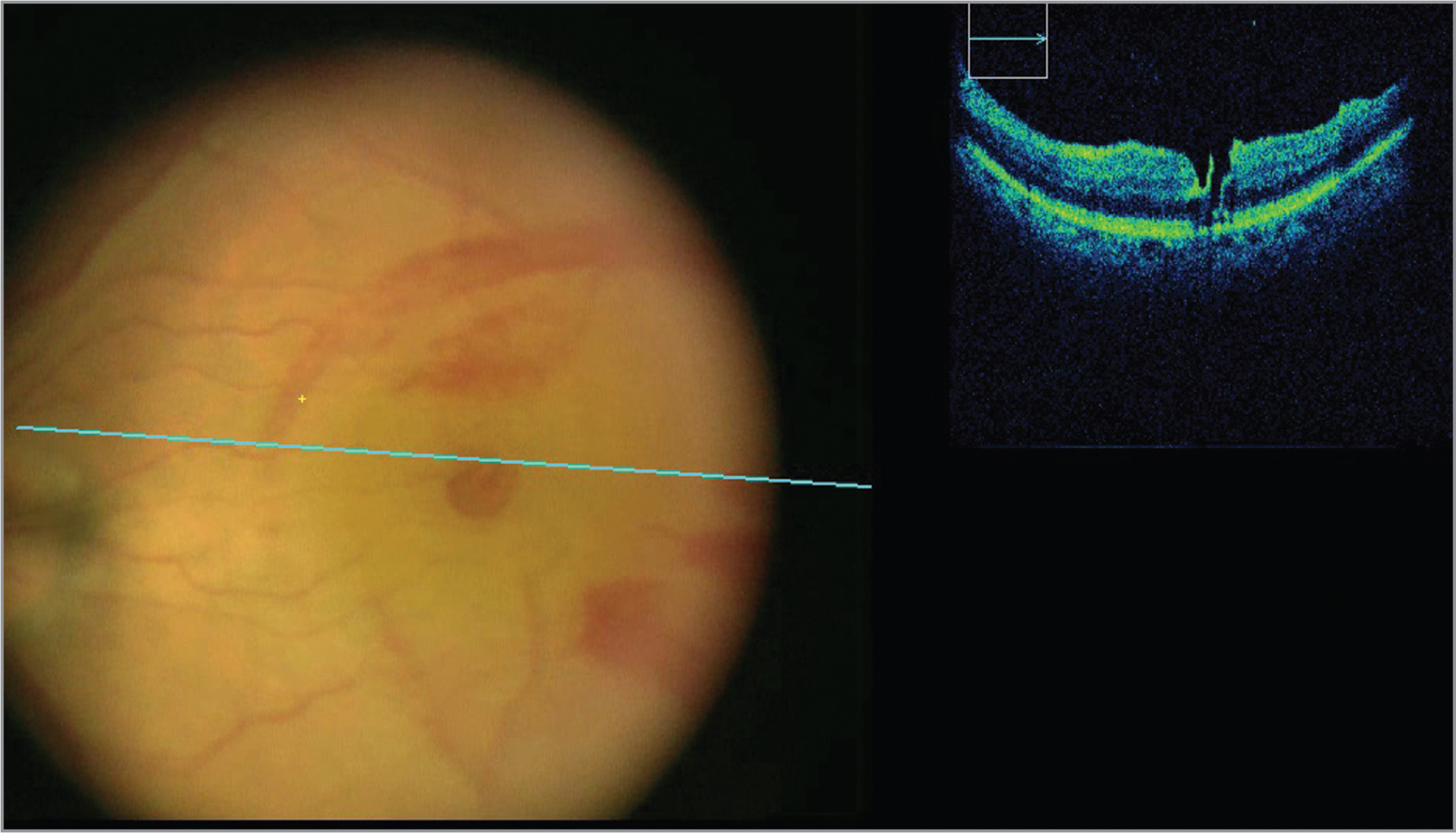 Intraoperative optical coherence tomography from surgeon's view demonstrating full-thickness macular hole.
