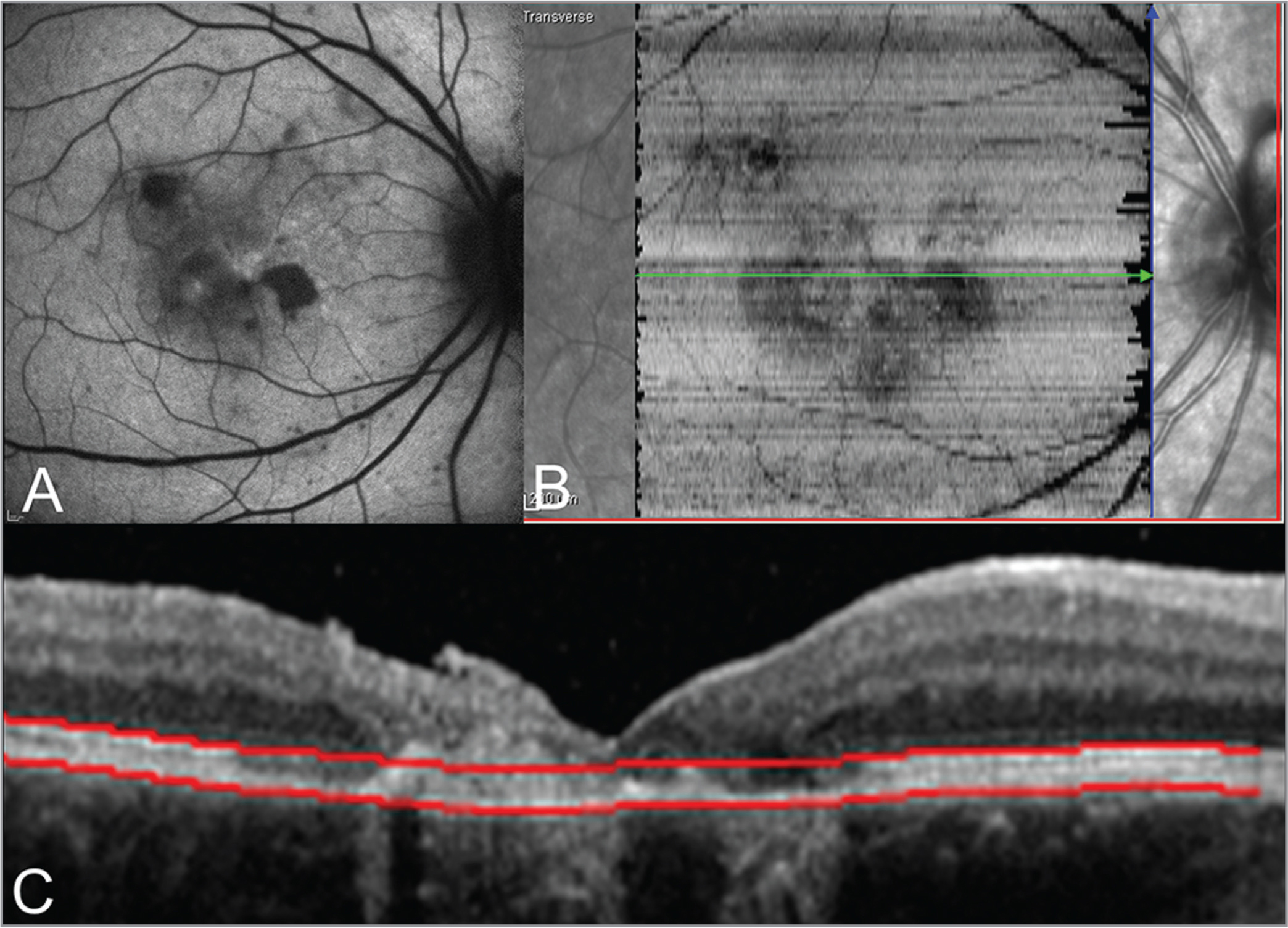 Multimodal imaging of a 13-year-old girl with outer retinal toxoplasmosis in her right eye (same patient as shown in Figure 3). (A) Fundus autofluorescence shows multiple areas of hypoautofluorescence corresponding to retinal pigment epithelium (RPE) loss. (B) En face spectral-domain optical coherence tomography (SD-OCT) segmented to the level of photoreceptor inner and outer segments and RPE and corresponding structural SD-OCT B-scan (C) demonstrate atrophy of the outer retina. Red segmentation lines show the level of the slab presented in panel B.