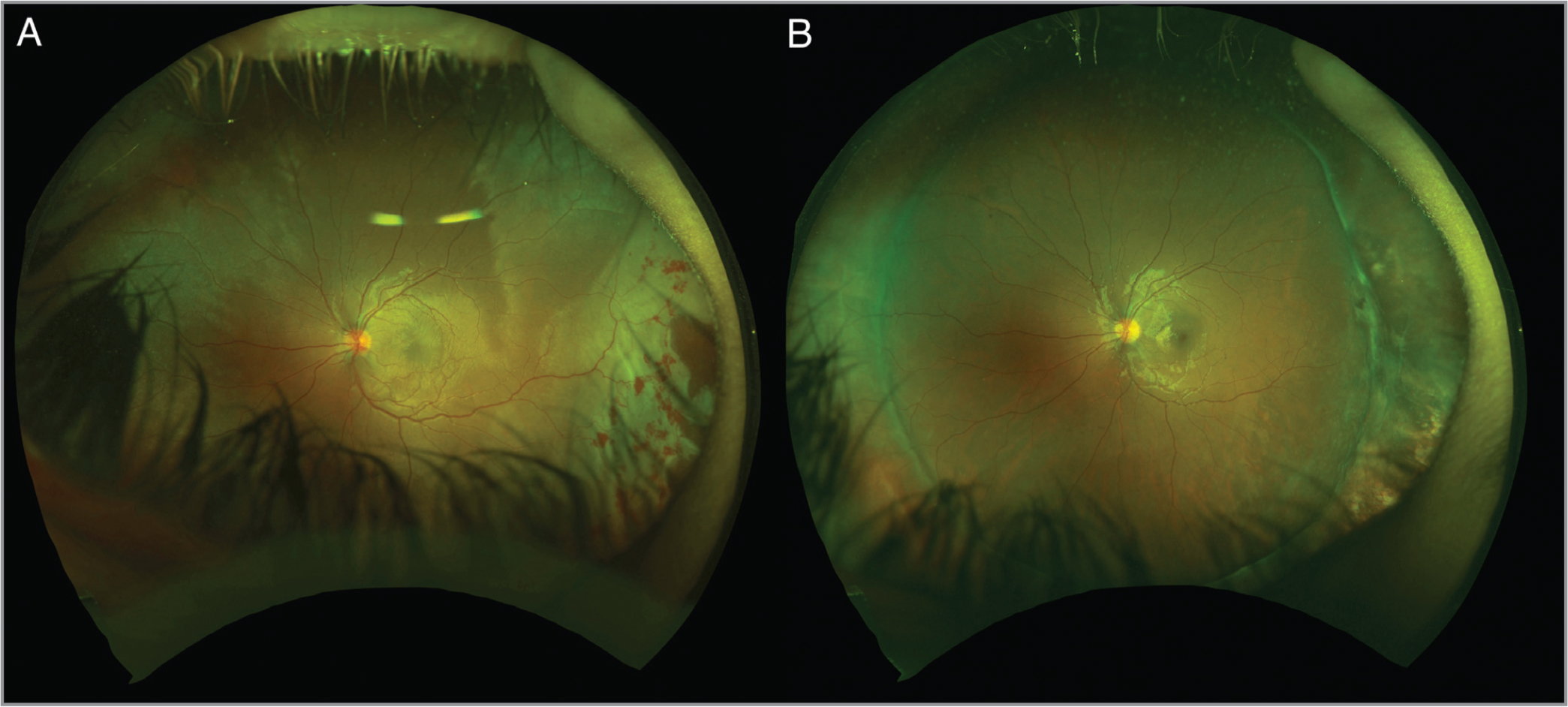 Case 1: Ultra-widefield imaging of the left eye (A) at presentation showing macular and peripheral superotemporal commotio retinae along with peripheral retinal defects and intra-retinal hemorrhage. (B) One year postoperatively showing encircling scleral buckle with retinal scar in the inferotemporal periphery.