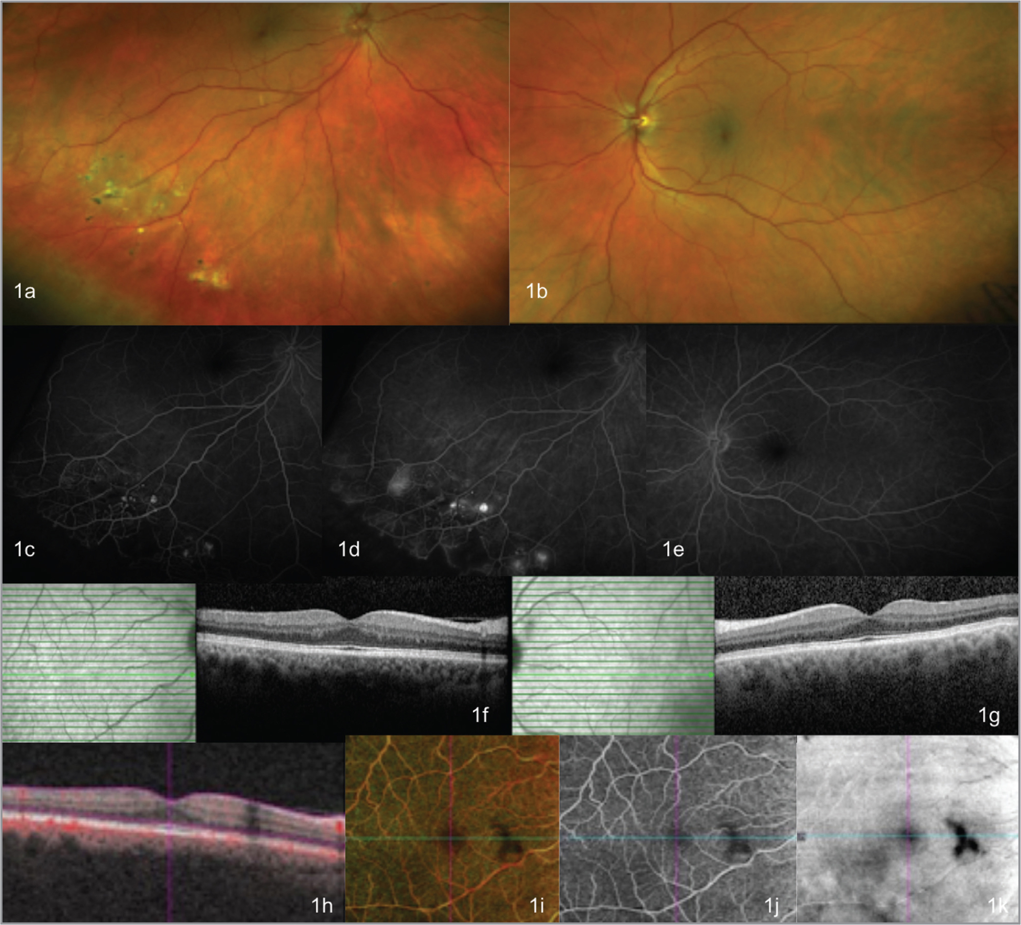 Multimodal ophthalmic imaging upon presentation showing microaneurysmal vascular changes and exudation on fundus photography (a), with peripheral capillary nonperfusion and aneurysms on fluorescein angiography (FA) (c, d), but a normal optical coherence tomography (OCT) (f) and OCT angiography (h–k) in the right eye. Fundus photography (b), FA (e), and OCT (g) were unremarkable in the left eye.