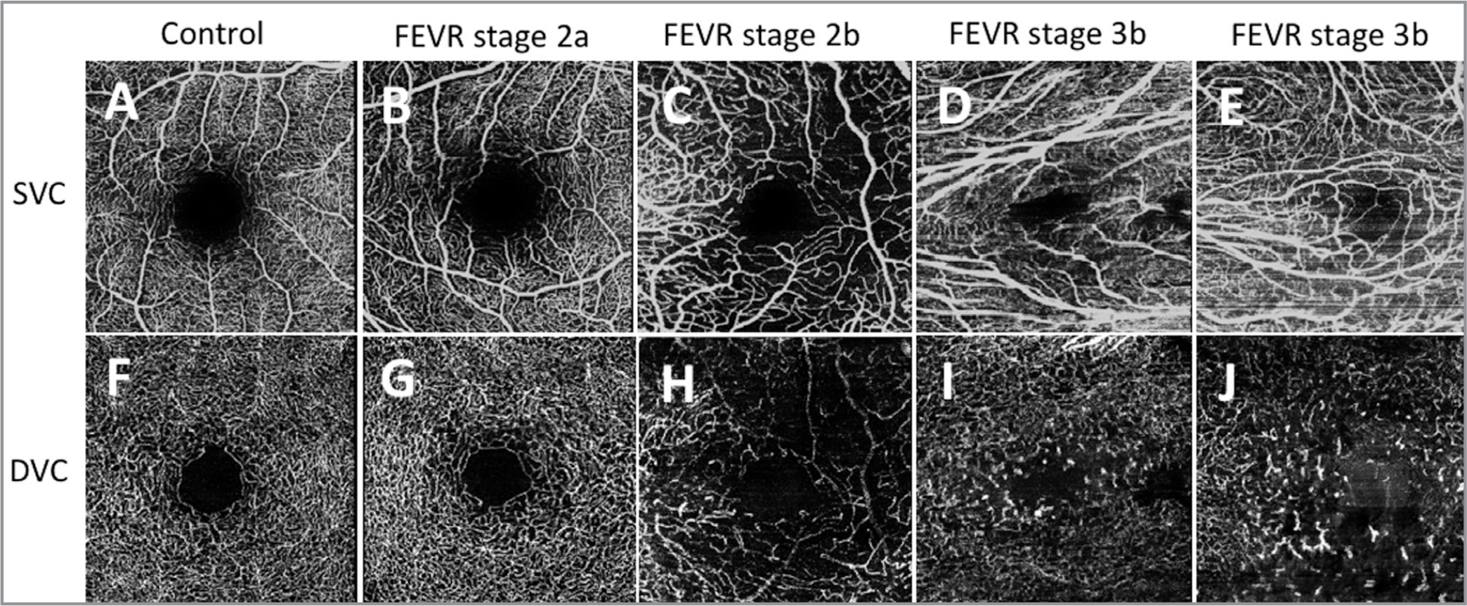 """Optical coherence tomography angiography showing the superficial vascular complex (SVC) (top row, A–E) and corresponding deep vascular complex (DVC) (bottom row, F–J) for a 16-year-old healthy control (A, F), a 22-year-old patient with familial exudative vitreoretinopathy (FEVR) stage 2a in the right eye (B, G), a 2-year-old with FEVR stage 2b in the left eye (C, H), a 16-year-old with FEVR stage 3b in the right eye (D, I), and a 21-year-old with FEVR stage 3b in the left eye (E, J). The SVC images show vessel dilation (C–E), disorganization (C–E), straightening (D, E), areas of increased and/or decreased density (C–E), and curls and loops (C, E). The DVC images show areas of decreased density (H–J), disorganization (H–J), and """"end bulbs,"""" or stub-like vessel terminations (H–J)."""