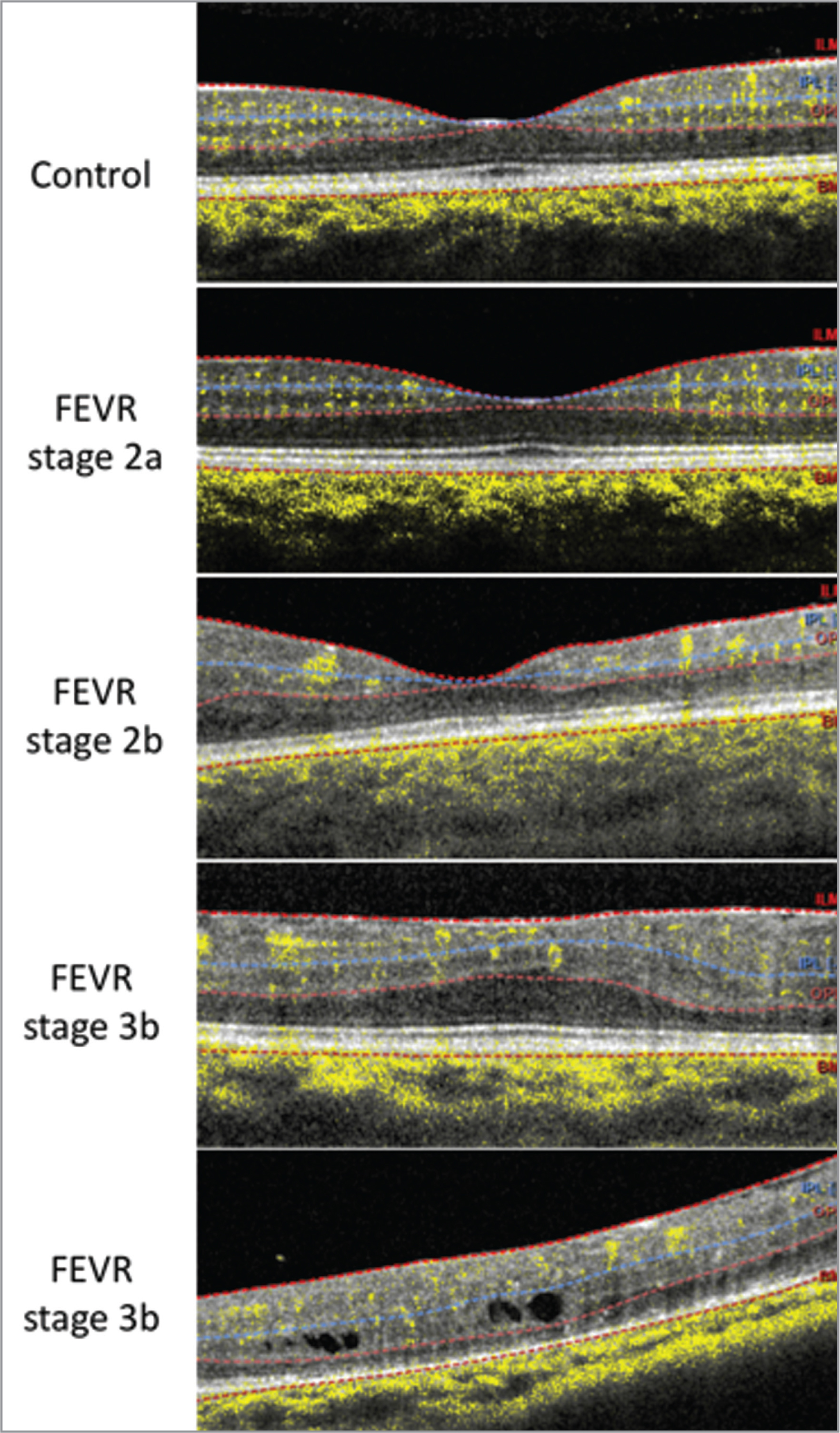 Cross-sectional optical coherence tomography (OCT)/OCT angiography (OCTA) scans corresponding to each of the eyes shown in Figure 1: control, familial exudative vitreoretinopathy (FEVR) stage 2a, FEVR stage 2b, FEVR stage 3b, and FEVR stage 3b. The dotted lines show the segmentation boundaries used to generate the en face OCTA images of the superficial vascular complex (internal limiting membrane to inner plexiform layer [IPL]) and deep vascular complex (IPL to outer plexiform layer).