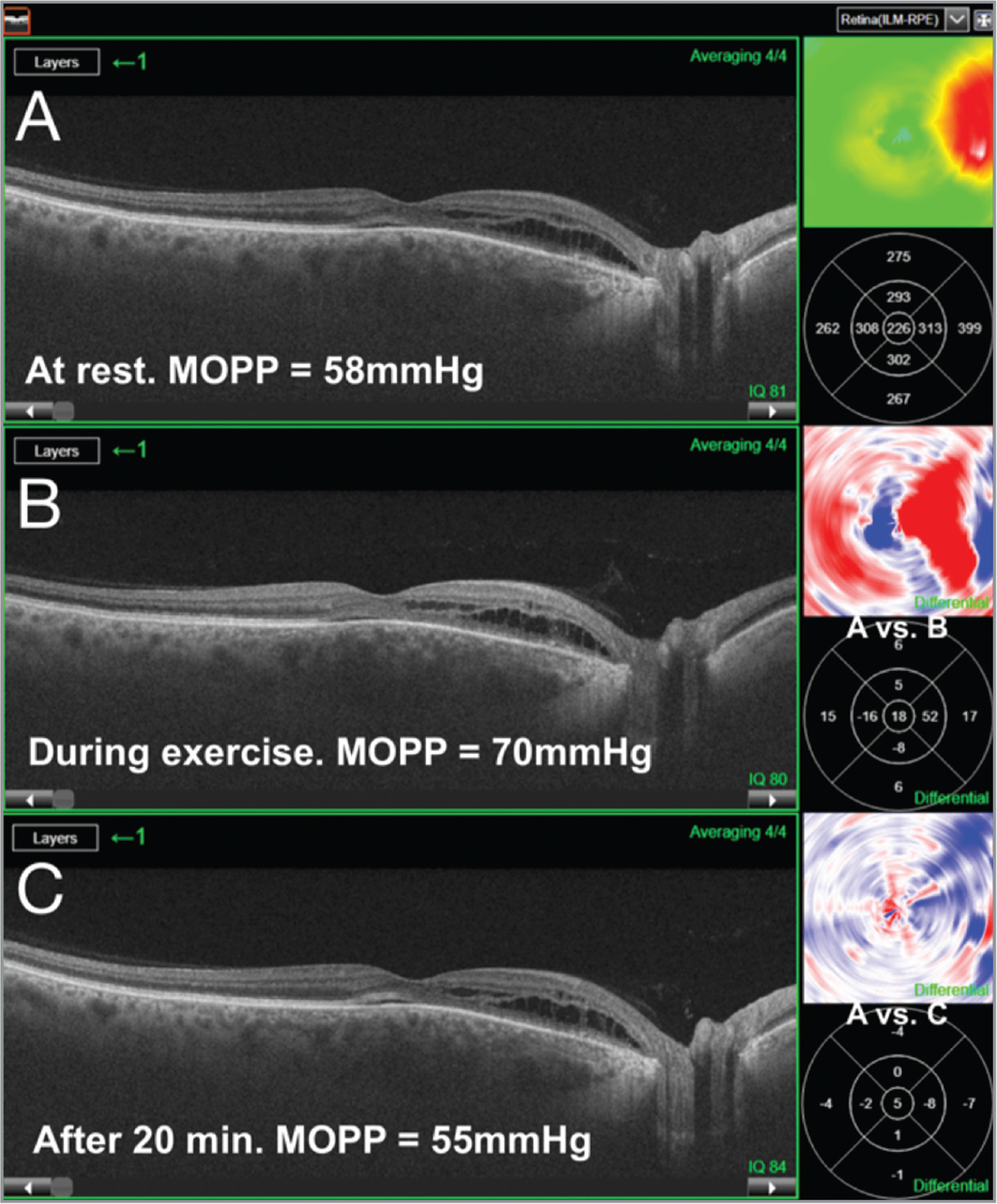 Retinal thickness before, during, and after the hand grip exercise. (A) Optical coherence tomography (OCT) scan and thickness map obtained at rest. (B) After 2 minutes of hand grip exercise, MOPP increase resulted in an increase of the retinal thickness as shown by the differential maps (A vs. B). (C) Retinal thickness returned to baseline values (differential maps show A vs C).MOPP: mean ocular perfusion pressure = 2/3 (mean arterial pressure − intraocular pressure), where mean arterial pressure = diastolic blood pressure + 1/3 (systolic blood pressure − diastolic blood pressure). The patient was asked to maintain 30% of his maximum hand grip strain for 2 minutes and for the duration of the OCT scans. We used the radial scan pattern centered on the fovea with a 12-mm length for each scan. Automatic segmentation was always reviewed to avoid and correct for segmentation errors.