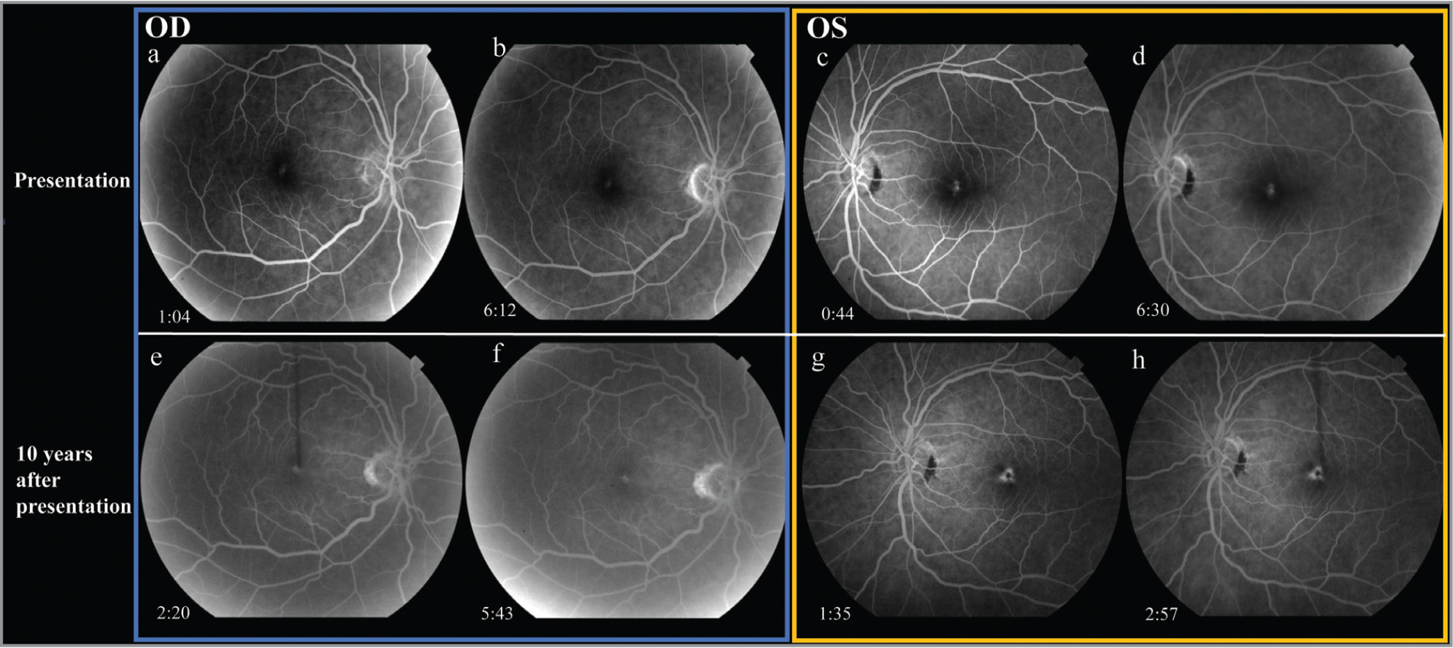 Early (a) and late-phase (b) fluorescein angiography (FA) at presentation (top row) of right eye and early (c) and late-phase (d) FA of the left eye demonstrates an early window defect in both eyes due to loss of outer retinal layers, without leakage or staining. Ten years after presentation (bottom row), early (e) and late-phase (f) FA of the right eye and early (g) and late-phase (h) FA of the left eye demonstrate a persistent window defect, with a focal point of subfoveal hypofluorescence corresponding to the RPE hyperplasia in the left eye (g and h). Transit time is shown in minutes.