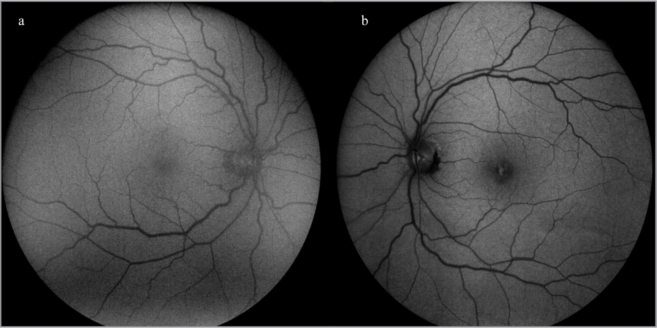 Fundus autofluorescence showing mild foveal hypoautofluorescence in the right eye (a) and central, focal, hyperautofluorescence surrounded by a diffuse rim of hypoautofluorescence in the left eye (b).