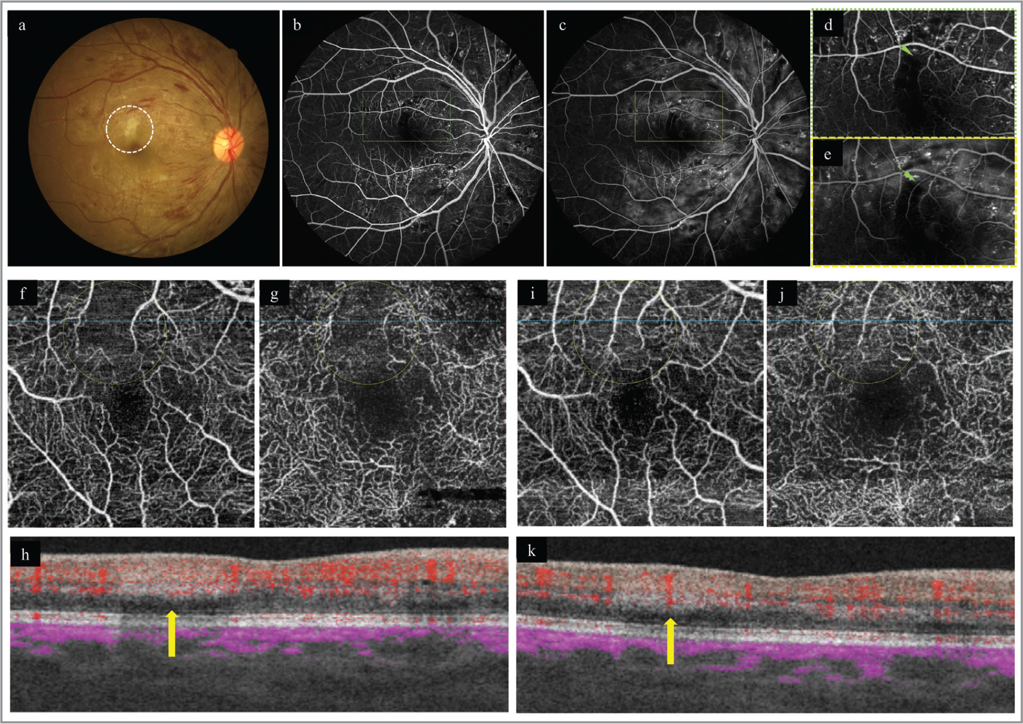 Fundus images 8 weeks after delivery. (a) A fundus photograph shows a gray band-like retinal opacity (circle). (b–e) Fluorescein angiography images were obtained at 19 seconds (b, d) and 47 seconds (c, e) after injection. The rectangles in b and c are enlarged on d and e, respectively. The third branch of the arterioles (arrows) has delayed filling but is not occluded. (f–h) Optical coherence tomography angiography (OCTA) images in the superfical (f) and deep (g) plexuses show flow voids corresponding to the arterial branch (circles). A flow-overlaid B-scan (h) at the blue lines on en-face OCTA images (f, g) shows a hyperrefective band in the middle retina and decreased flow signal in the arterial branch (yellow arrows). (i–k) Repeated OCTA images 2 hours after the first scan show reperfusion of the arterial branch and nearby capillaries in both plexuses (i, j, yellow circles). A flow-overlaid B-scan (k) also shows increased flow signal in the arterial branch (yellow arrow).