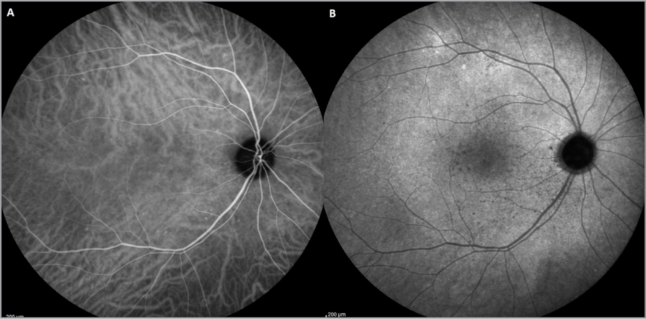 (A, B) Indocyanine green angiography revealing in the early stages of examination the disappearance of hypofluorescent areas (A); the late stages demonstrated a marked decrease of hypofluorescent areas detected 3 months before (B).
