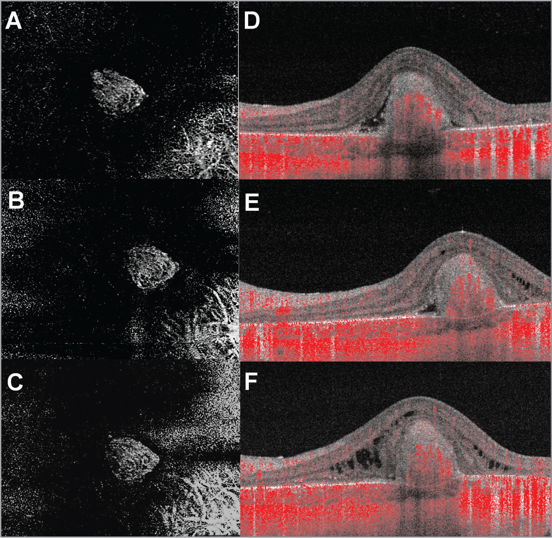 Swept-source optical coherence tomography angiography of choroidal neovascular membrane in choroideremia. Compared to baseline en face imaging (A), the size of the neovascular lesion did not change significantly at 1-month post-injection (B) or at last follow-up (C). There appears to be pruning of small vessels compared to baseline 1-month post-injection (B), with regrowth after a 3-month injection holiday (C). Doppler flow through the lesion persists with treatment (D–F). Subretinal and intraretinal fluid is decreased at 1-month post-injection (E) but reaccumulates with prolonged 3-month injection holiday (F).
