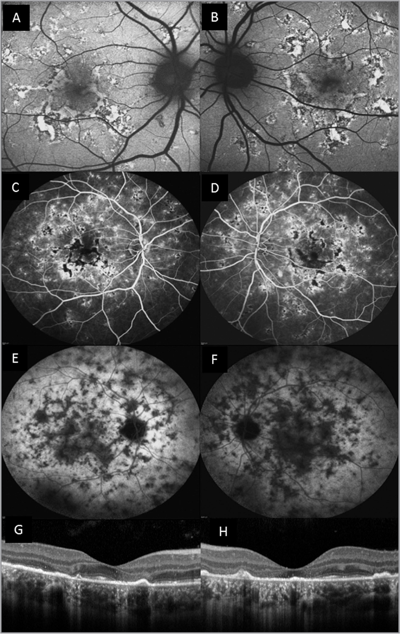 Multimodal imaging of patient No. 2; both right and left eyes are shown. (A, B) Fundus autofluorescence. (C, D) Fluorescein angiography. (E, F) Indocyanine green angiography showing bilateral acute posterior multifocal placoid pigment epitheliopathy features. (G, H) Spectral-domain optical coherence tomography revealing diffuse defects of external limiting membrane, photoreceptors, and retinal pigment epithelium with back scattering.