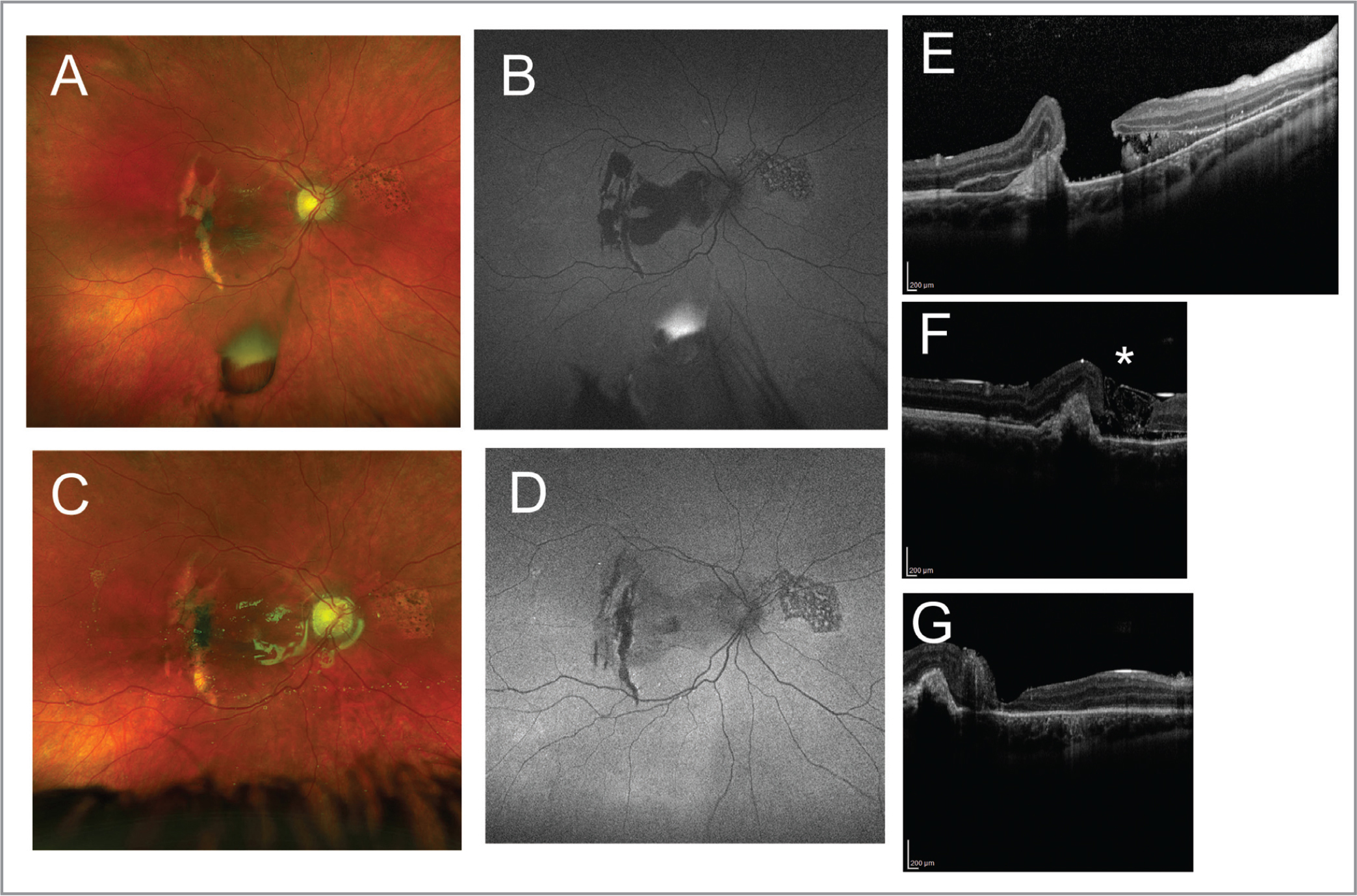 An 11-year-old male with large traumatic macula hole (MH) associated with choroidal rupture and subretinal hemorrhage (SRH) failed to have hole closure with 6 weeks of observation. It measured 941 μm at its smallest diameter and 4,403 μm at its largest diameter at the base, including subretinal fluid. Ultrawide-field color fundus photography before (A) and 1 month after (C) MH repair with modified Karabas technique with silicone oil tamponade and 1-week face-down positioning. Ultrawide-field fundus autofluorescence before (B) and 1 month after (D) MH repair showed reduction in macular hypoautofluorescence after drainage of SRH and closure of MH. Spectral-domain optical coherence tomography (SD-OCT) horizontal foveal raster scans before (E) surgery show large MH with SRH associated with choroidal rupture. SD-OCT scans 1 day (F) and 1 month (G) shows ILM flap (*) is replaced by photoreceptors with continued healing. Preoperative visual acuity improved from 20/400 to 20/100 at 4 months postoperatively. See Supplemental Video 1, available at www.healio.com/OSLIRetina.