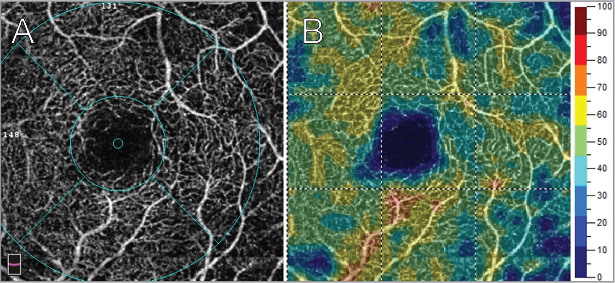 (A) 3 mm × 3 mm optical coherence tomography angiography image of the left macular deep capillary plexus in a patient with retinitis pigmentosa. (B) Vessel density map indicating percentage density of blood vessels. Parafoveal capillary perfusion density was measured at 51.86%.