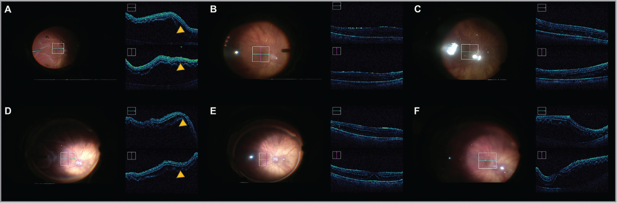 Intraoperative optical coherence tomography (iOCT) images of the macula in eyes that underwent vitrectomy with perfluoro-n-octane (PFO) infusion for a macula-off rhegmatogenous retinal detachment (RRD). iOCT images for eyes with a macula-off RRD that had a pars plana vitrectomy with PFO. Images were taken through the fovea just prior to vitrectomy (A, D), post PFO fill (B, E), and after fluid-air exchange. (C, F). Yellow arrowhead indicates subfoveal fluid.