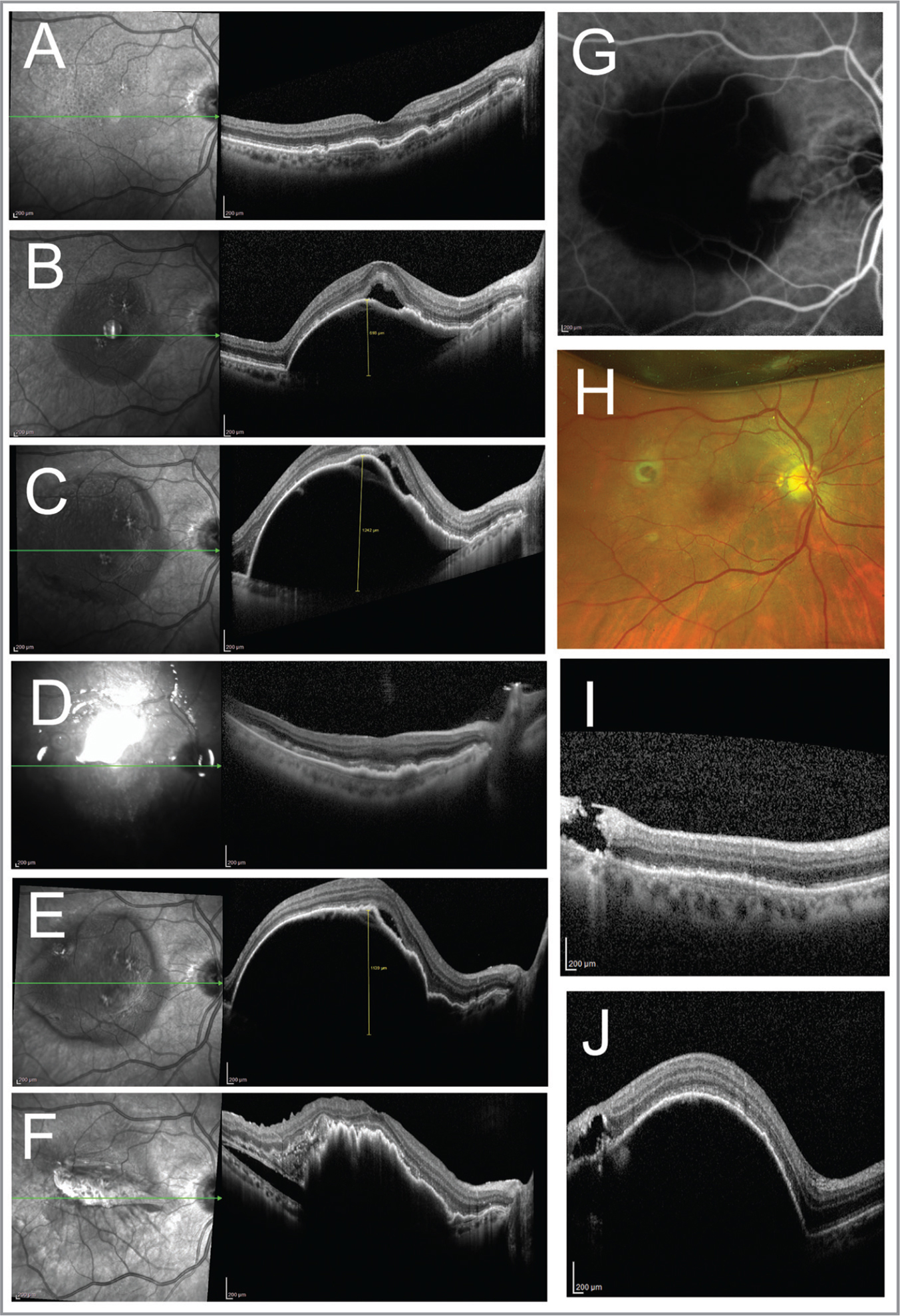 Spectral-domain optical coherence tomography (SD-OCT) foveal raster scans and corresponding infrared (IR) registration images of the right eye before (A–C) and after (D–F) surgical drainage of the pigment epithelial detachment (PED). After first presentation of subretinal fluid from conversion to wet age-related macular degeneration (A), a serous PED gradually enlarged despite aggressive conventional treatment (B). The PED grew to a maximum height of 1,242 μm (C). Postoperative day 1 SD-OCT demonstrated flattening of the PED and eccentric macular hole at the retinotomy site (D). The PED recurred 4 weeks postoperatively, and despite continued conventional treatment RPE tear without subretinal hemorrhage developed (F). Indocyanine green angiography demonstrated nasal location of the choroidal neovascularization under the papillomacular bundle precluded laser photocoagulation. False color fundus image at 1 week postoperatively showing flattened PED and superotemporal retinotomy (G). SD-OCT raster scans and IR registration images through the retinotomy in the right eye (I, J) demonstrate closure was associated with recurrence of PED.