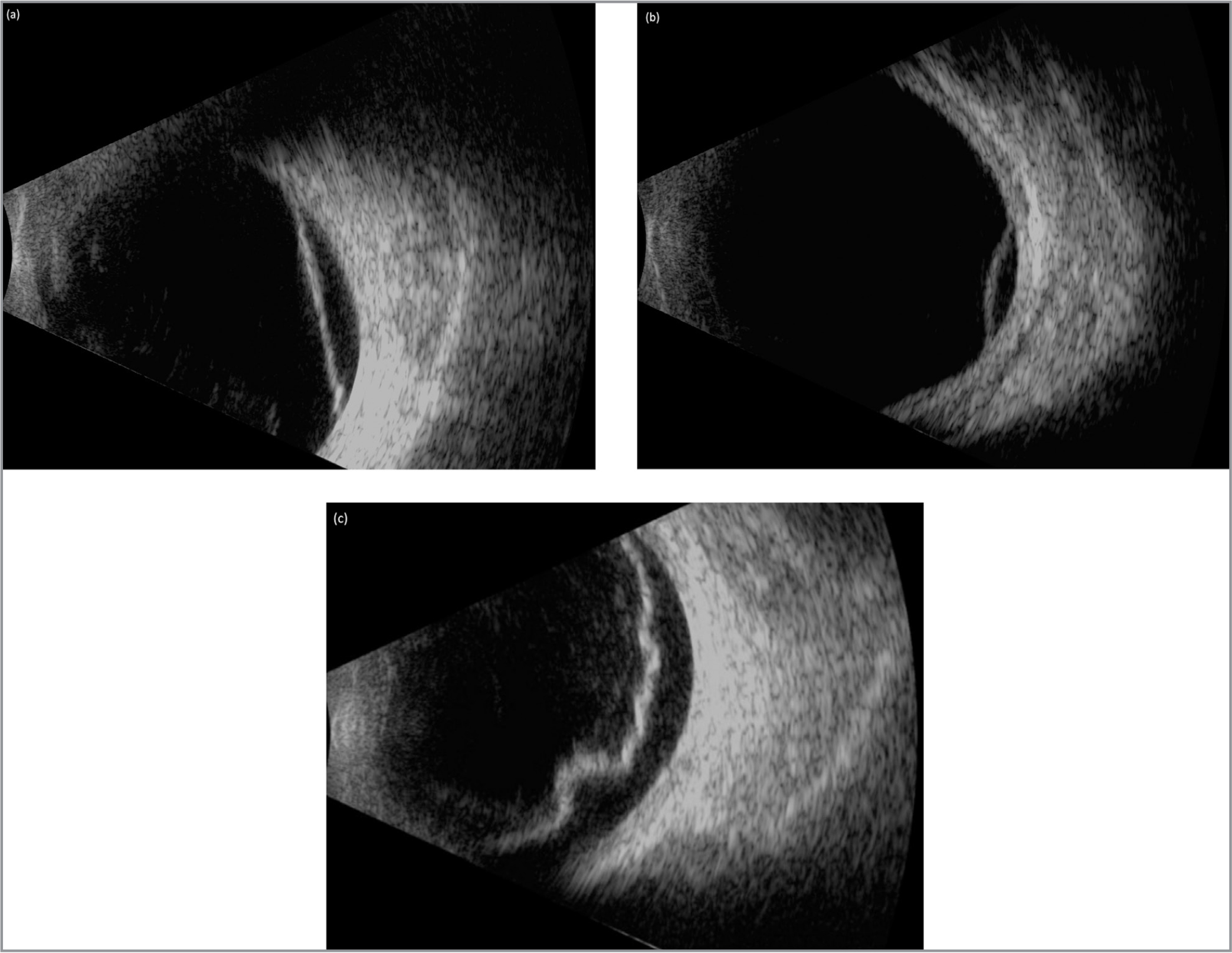 Sample images for ultrasonography B-scan retinal structures categorized as flat, membranous-shaped (a), dome-shaped (b), and irregular membranous-shaped (c).