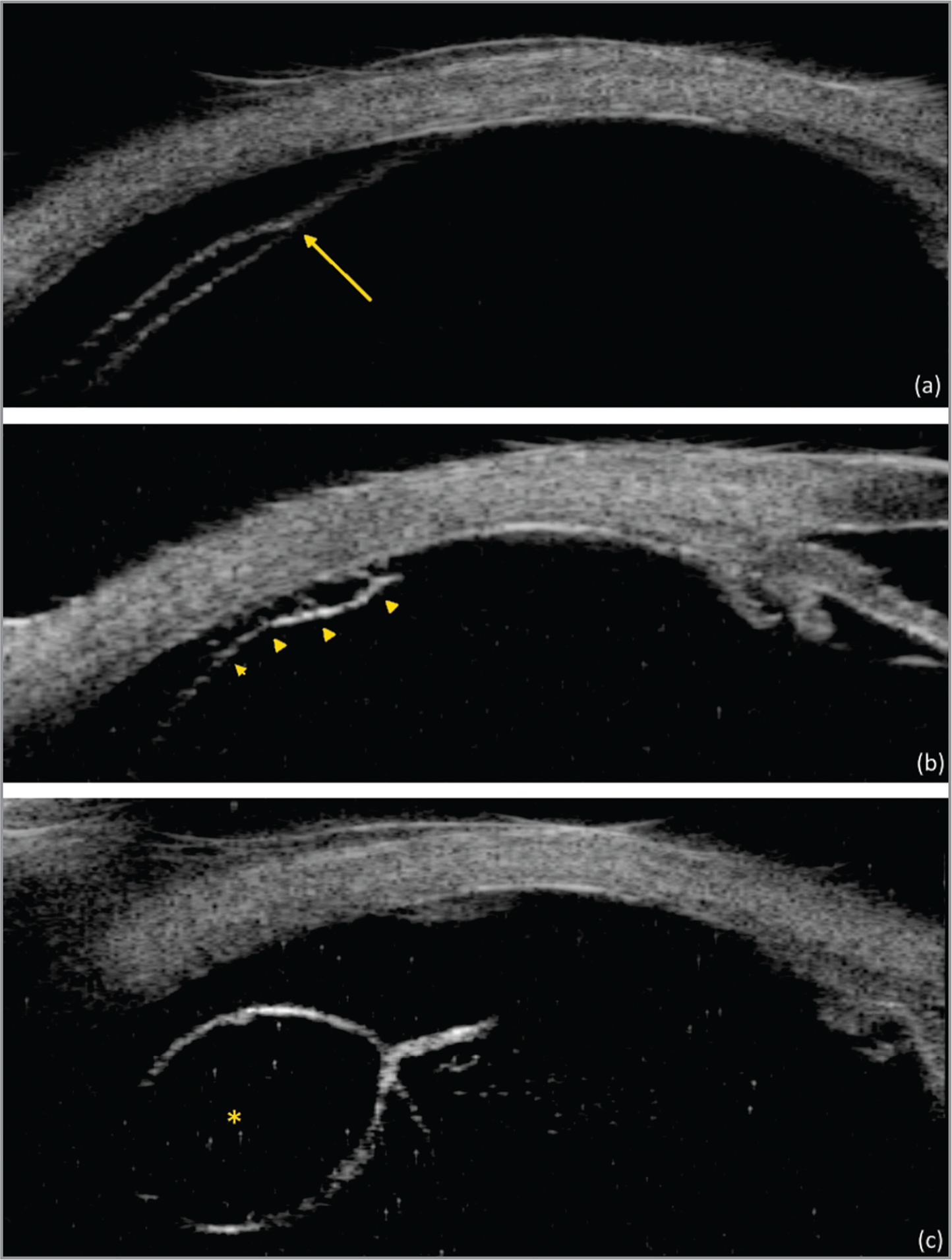 Sample images of ultrasound biomicroscopy retinal structures: Retinal layers split (a), intraretinal pillars (b), and intraretinal cysts (c).