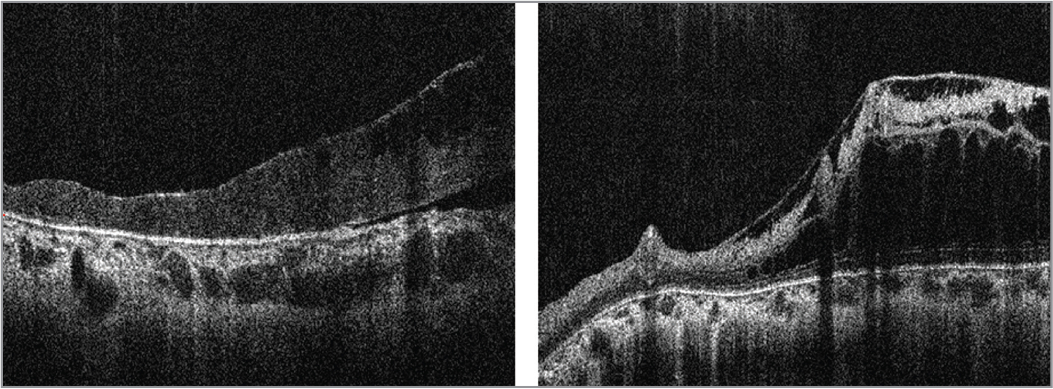 Optical coherence tomography images of retinoschisis. (Left) Right eye (OD) of Patient K3 with retinal detachment and retinoschisis overlying dilated choroidal vessels and pachychoroid. (Right) OD of Patient K4 with abnormal epiretinal membranes, and retinoschisis. (The vitreoretinal traction is not clearly visible in these images).