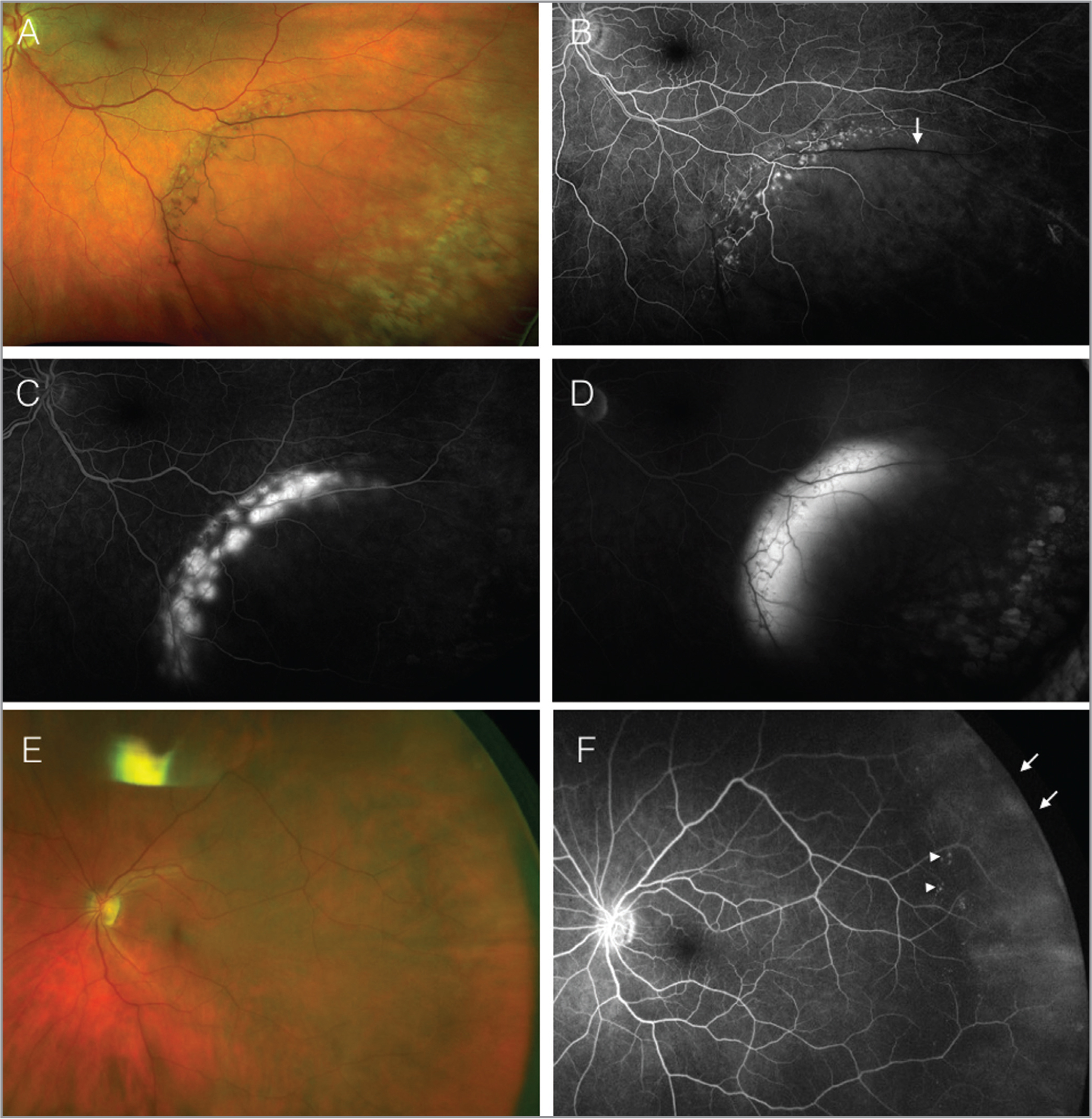 Representative pseudocolor (A) and fluorescein angiography (B–D) ultra-widefield images of a patient with degenerative retinoschisis (RS). Early (B), mid- (C), and late-phase angiograms illustrate diffuse retinal vascular leakage at the border of the schisis cavity that emanates from the deep retinal capillary plexus. Notice the delayed vascular filling of the retinal vein over the schisis cavity (B, arrow), despite the presence of laminar flow elsewhere (B). Peripheral shallow RS (E) with diffuse vascular leakage in a ground glass pattern (F, arrows). There are microaneurysmal-like hyperfluorescent lesions at the edge of the schisis (F, arrowheads).