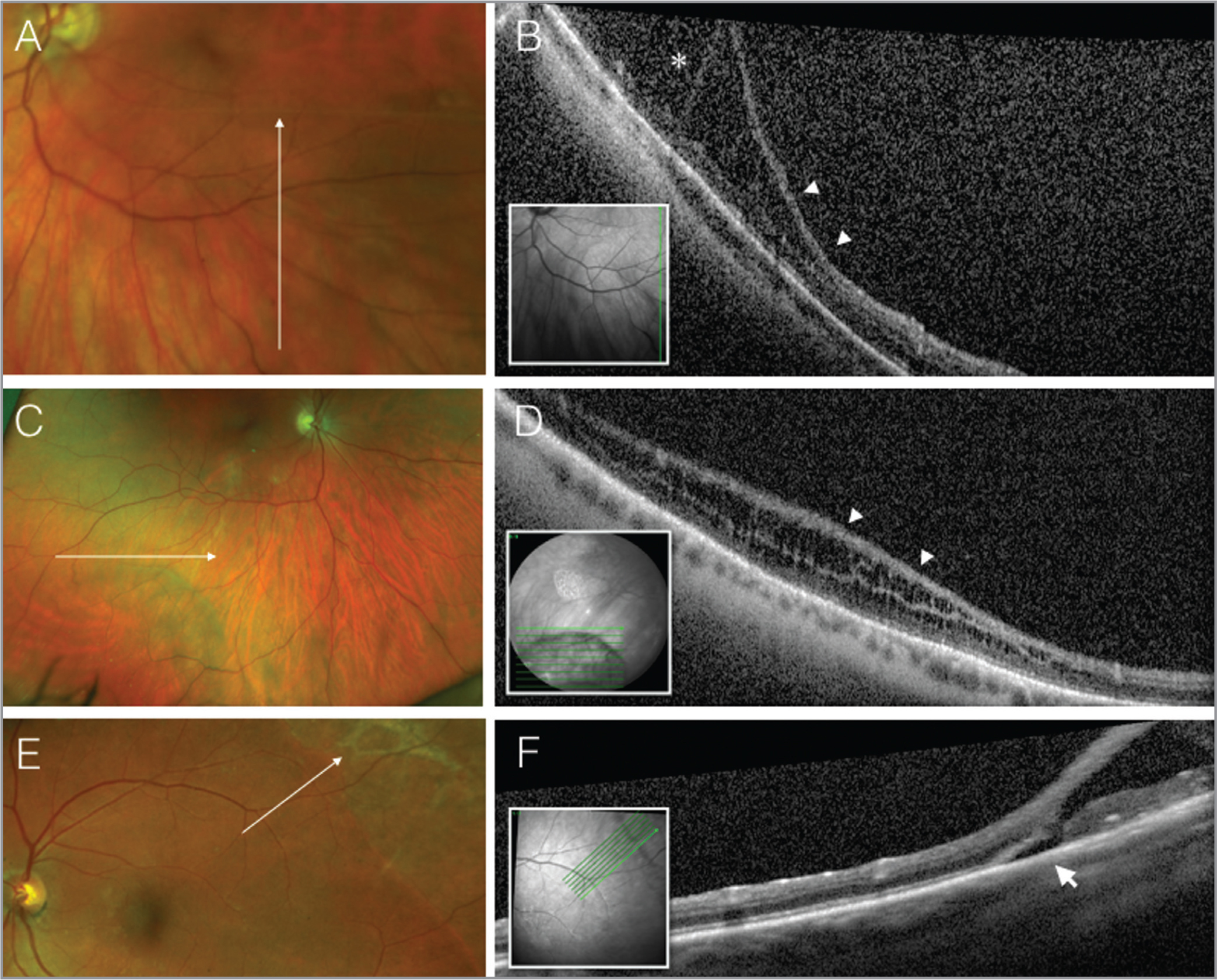 Pseudocolor fundus photos (A, C, E) and spectral-domain optical coherence tomographies (B, D, F) through the areas of retinoschisis illustrating inverted image artifacts (B, asterisk), variable splitting in the OPL and IPL layers (B and D, arrowheads) and a subclinical retinal detachment (F, arrow) associated with an outer retinal hole.