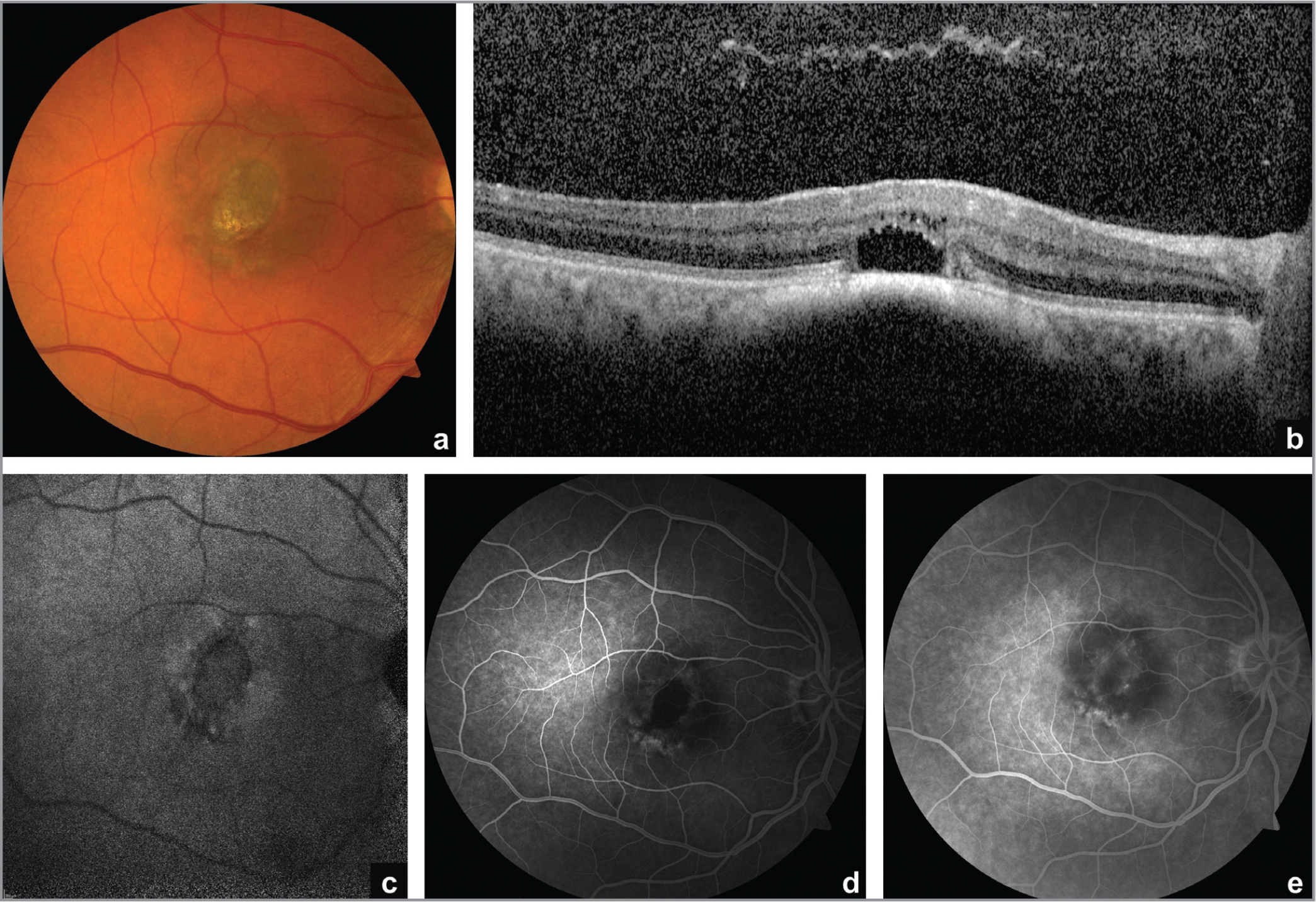 (a) Color photograph of the right eye shows a brown macular lesion with oval central retinal pigment epithelial (RPE) atrophy. (b) Subfoveal enhanced depth imaging optical coherence tomography reveals a slightly elevated choroidal lesion with gentle-sloping anterior border and deep shadowing. Overlying this lesion, there is outer retinal atrophy. (c) Infrared autofluorescence reveals central hypoautofluorescence consistent with loss of RPE. (d, e) Fluorescein angiography shows a predominantly hypofluorescent lesion with a ring of central hyperfluorescence in early (d) and late frames (e), compatible with window defect from RPE loss.