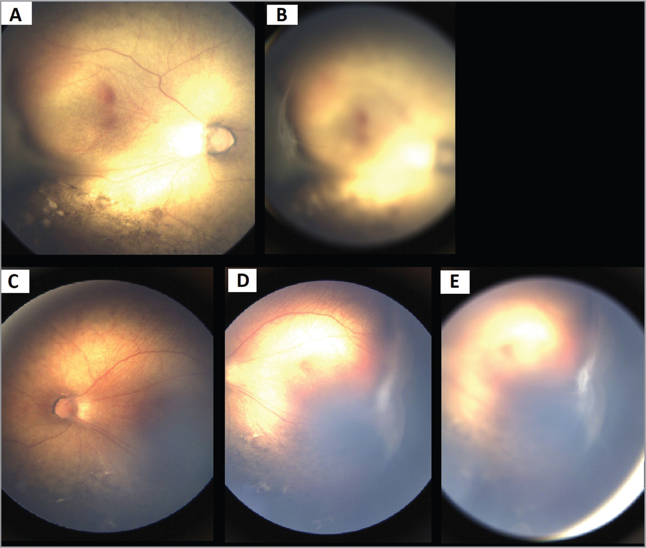 Temporal retinal exudative tractional folds in familial exudative vitreoretinopathy in the right (A) and left (C, D) eyes associated with retrolenticular adhesion (B, E).
