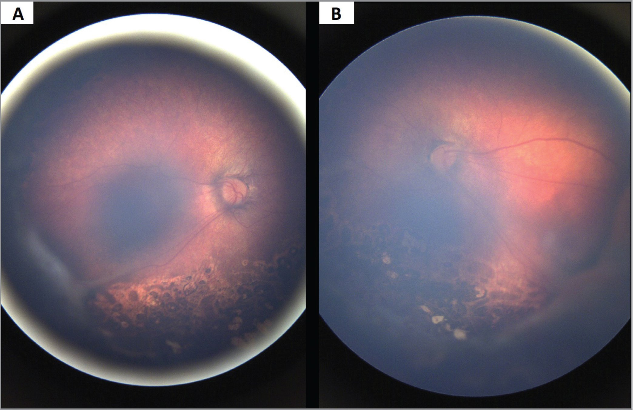 Released retrolenticular adhesion with near-resolution of the temporal exudative tractional retinal detachments in the right (A) and left (B) eyes status post-bilateral scleral buckling.