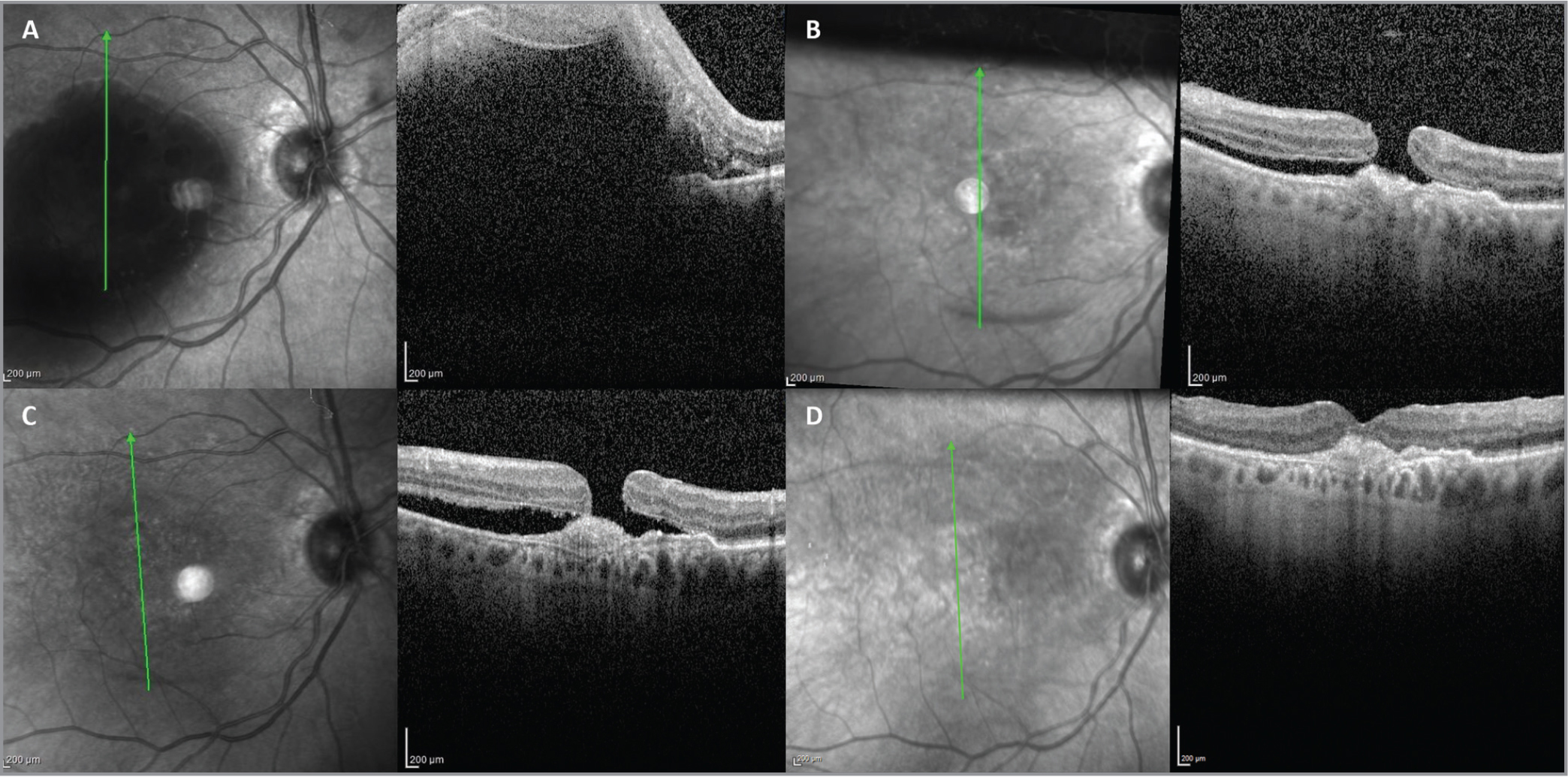 Optical coherence tomography (OCT) of submacular hemorrhage secondary to neovascular age-related macular degeneration (nAMD). OCT of (A) the right eye reveals submacular hemorrhage secondary to nAMD. Imaging revealed subretinal fluid (SRF) with retinal thickening consistent with macular edema. Postoperative imaging at (B) 10 days and (C) week 3 after vitrectomy with tissue plasminogen activator administration demonstrated a macular hole (MH) with persistent SRF and a pigment epithelial detachment (PED). The eye then underwent MH repair with vitrectomy and an internal limiting membrane peel. At postoperative week 1 (D), the MH is closed with resolution of the SRF but persistence of the PED.