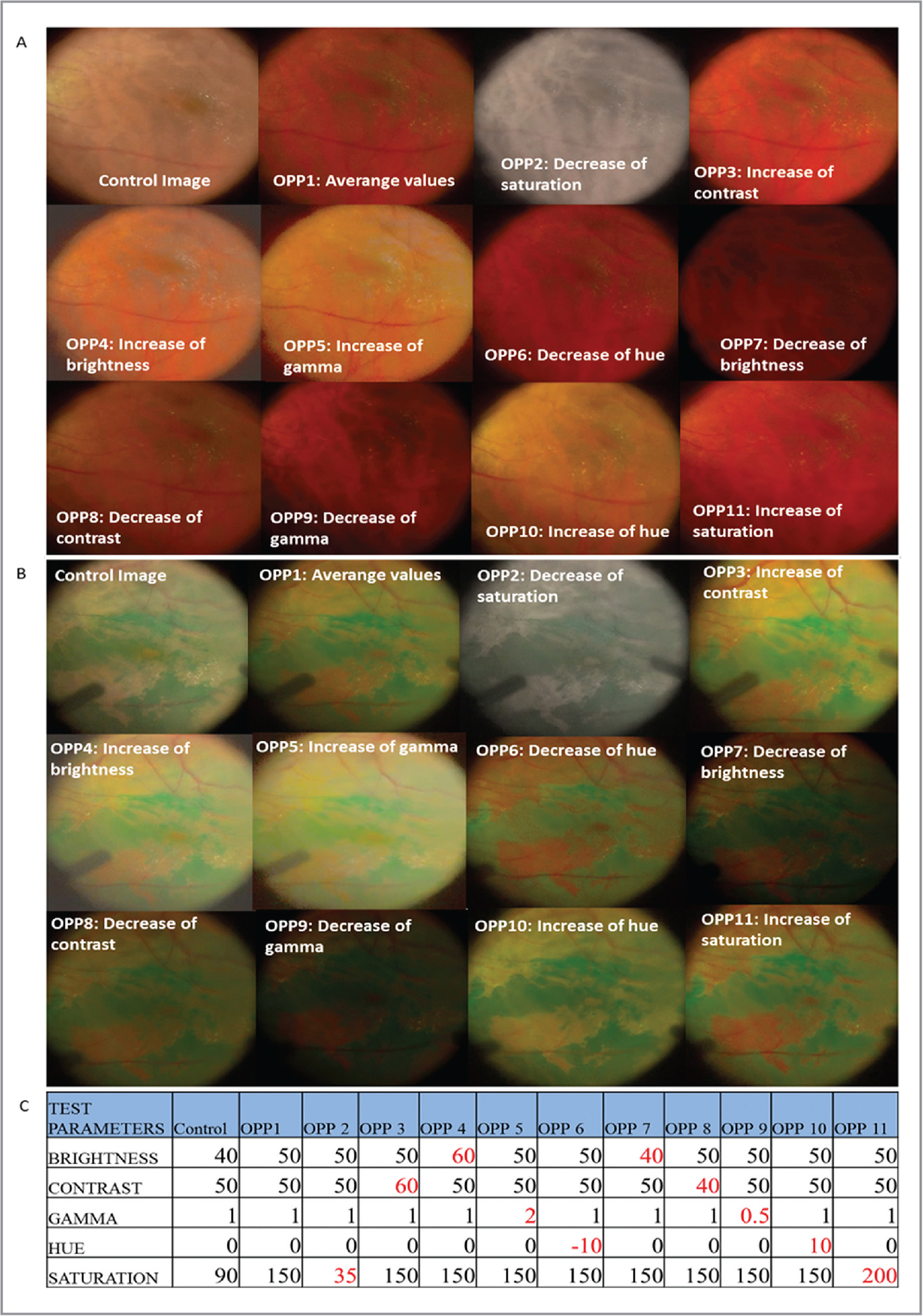 Intraoperative photographs of each unique optical parameter profile (OPP) during heads-up surgery. (A) Before use of indocyanine green (ICG) dye. (B) After use of ICG dye. (C) Values of the parameters used in each OPP.