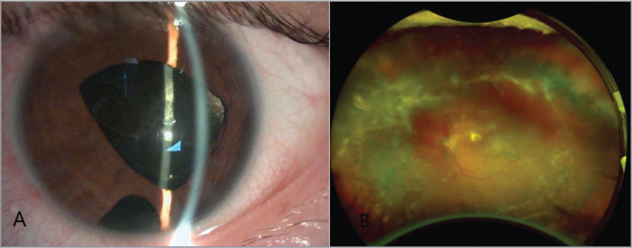 Photographs of the left eye 1 month after the implantation. (A) Normal-depth anterior chamber, dilated pupil, and foldable capsular vitreous body in place. (B) Attached retina, widespread necrosis lesions, and defects in periphery.