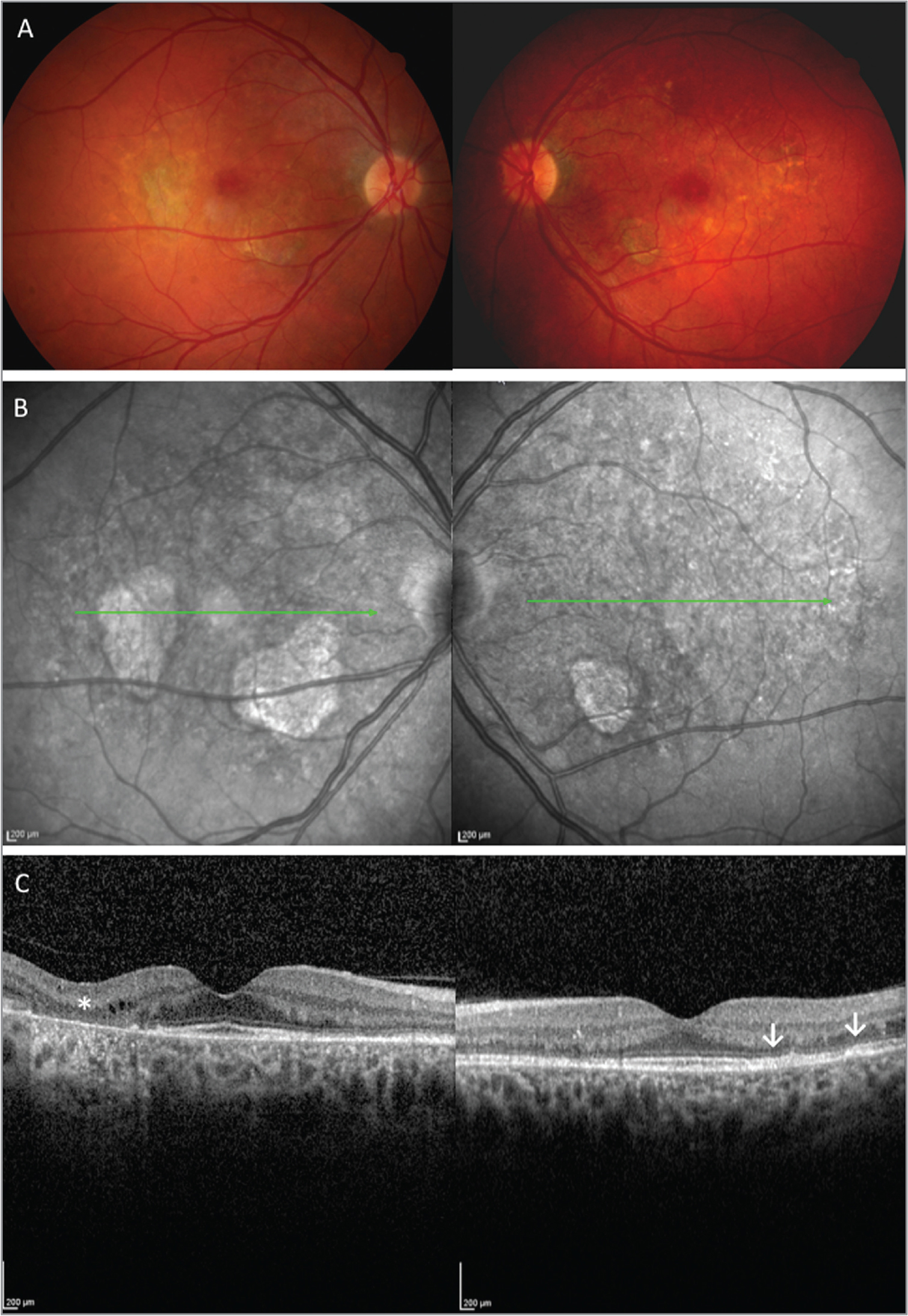 Typical presentation of pentosane polysulfate sodium maculopathy. (A) Color fundus photos show bilateral hypopigmented spots and patchy retinal pigment epithelium (RPE) atrophy. (B) Near-infrared reflectance imaging highlights atrophy as areas of hyperreflectance and depicts the overall pigment disturbance, and (C) optical coherence tomography shows perifoveal areas of outer retinal and RPE atrophy with overlying intraretinal cysts (asterisk) and focal RPE thickening (arrows).