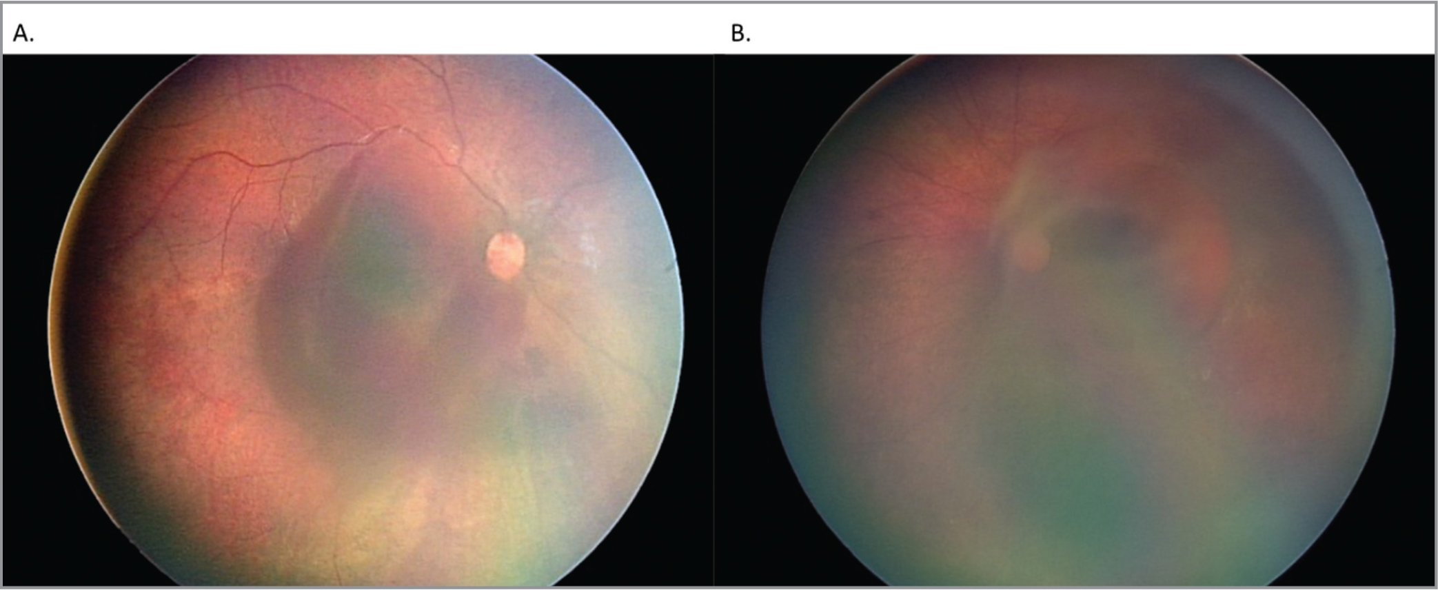 Color fundus photographs of a 6-month-old male victim of non-accidental trauma without amblyopia. (a) There is a large subhyaloid hemorrhage of the right eye, as well as scattered intraretinal hemorrhages in the periphery. This eye was observed, with clearance of the blood in 10 weeks. (b) Color fundus photograph of the left eye of the same patient with a fovea-involving sub-internal limiting hemorrhage that spans the entire macula, multiple intraretinal hemorrhages, and non-central vitreous hemorrhage of the left eye. This eye underwent vitrectomy 8 weeks after initial presentation.