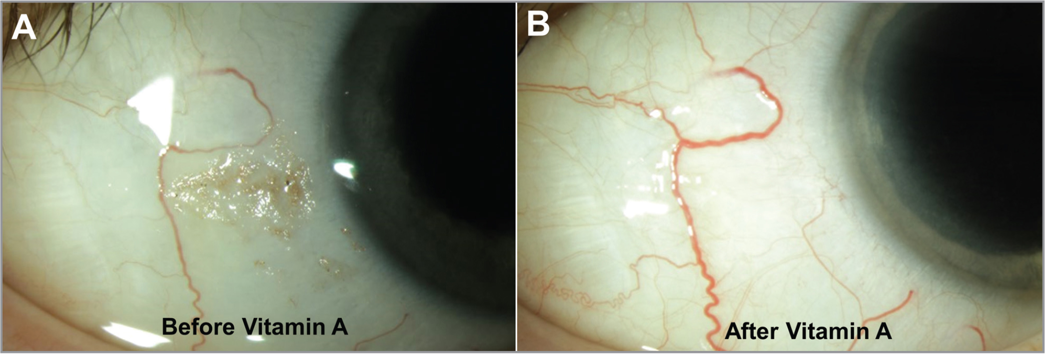 Slit-lamp photographs of a patient with vitamin A deficiency (A) before and (B) 3 months after intramuscular and oral vitamin A supplementation, showing resolution of Bitot's spots.