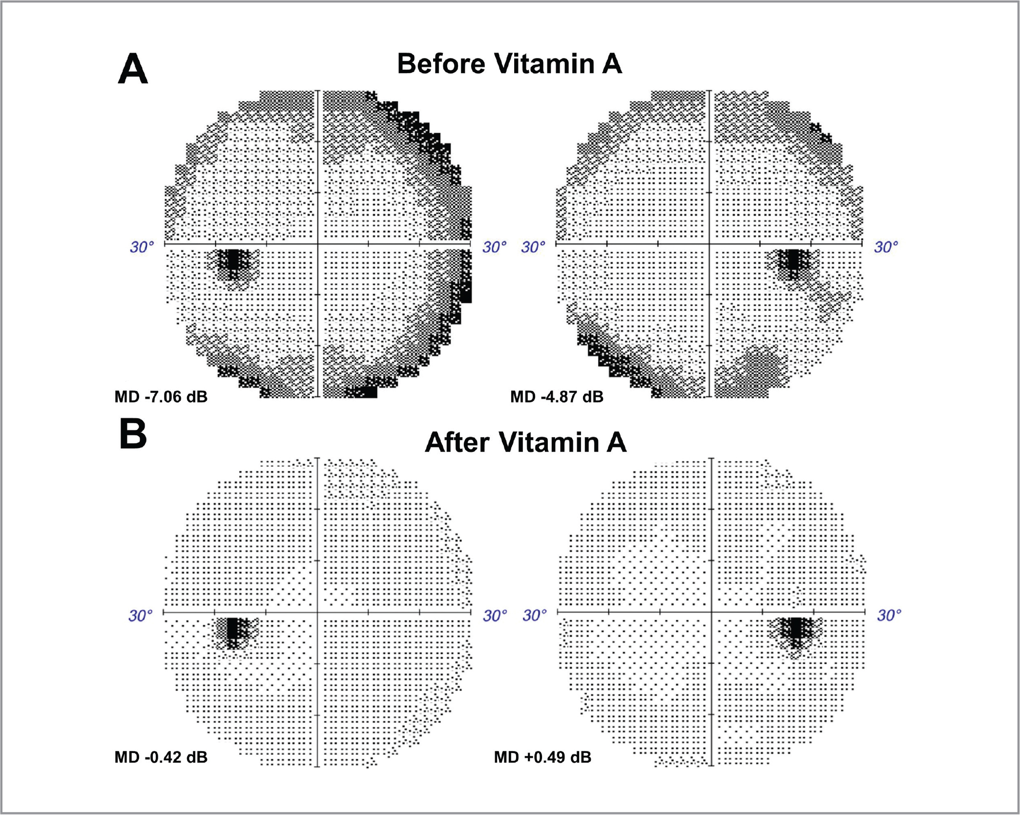 30-2 Humphrey visual field studies of both eyes in a patient with vitamin A deficiency (A) before and (B) 3 months after vitamin A supplementation, showing recovery of visual field constriction. MD = mean deviation.