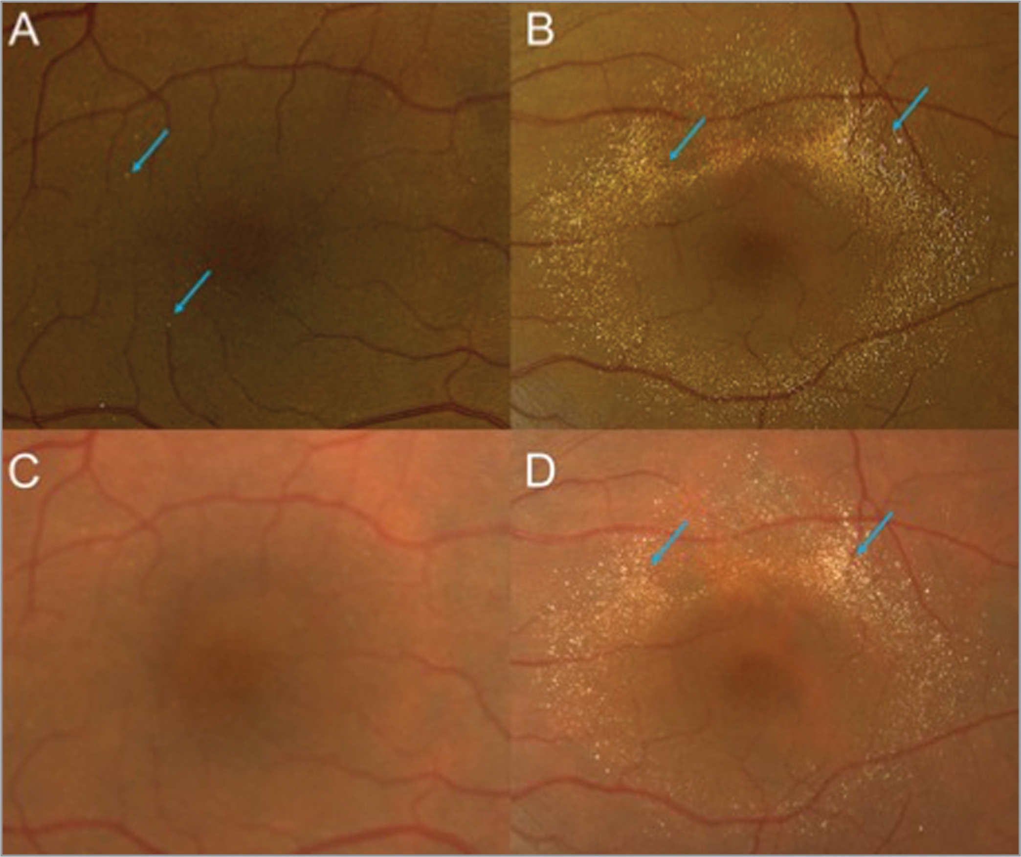 Fundus photography at presentation (A, B) showed a few crystals (blue arrows) in the right eye (A). However, the left eye had a circinate pattern of crystalline retinopathy limited to the macula (B). Fundus photography 4 years later (C, D) revealed that although the right eye had significantly improved, the cathaxanthin crystalline retinopathy (blue arrow) was persistent but the number of crystals had decreased in the left eye (D) compared to presentation.