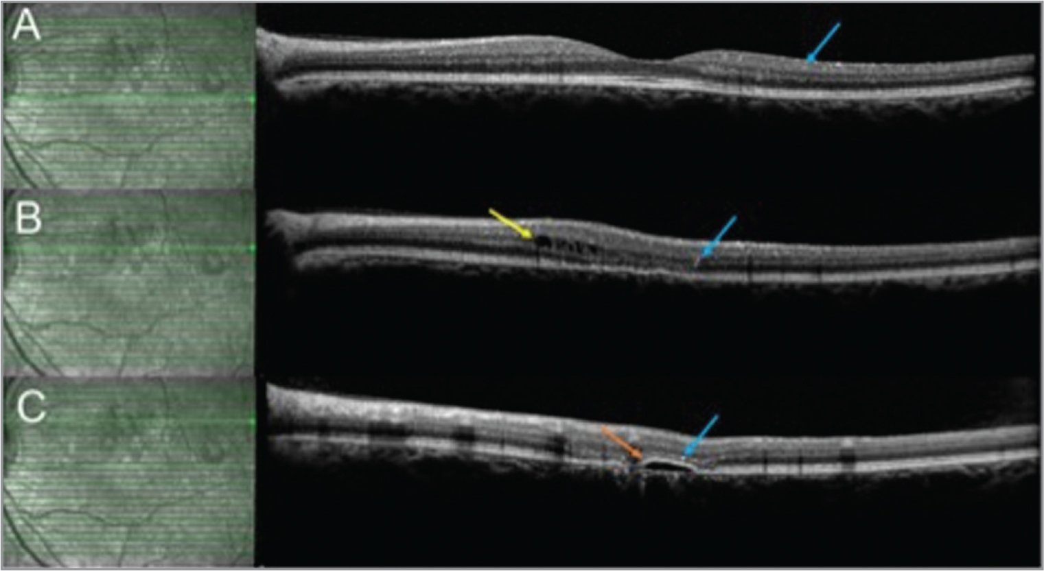 Optical coherence tomography of the left macula 4 years after presentation continued to have canthaxanthin crystals (blue arrows) at various parts of the retina. New intraretinal cysts (yellow arrow) (B), disruption of the retinal pigment epithelium (B, C), outer retinal atrophy, and a pigmented retinal detachment (orange arrow) (C) were all detected at this visit.