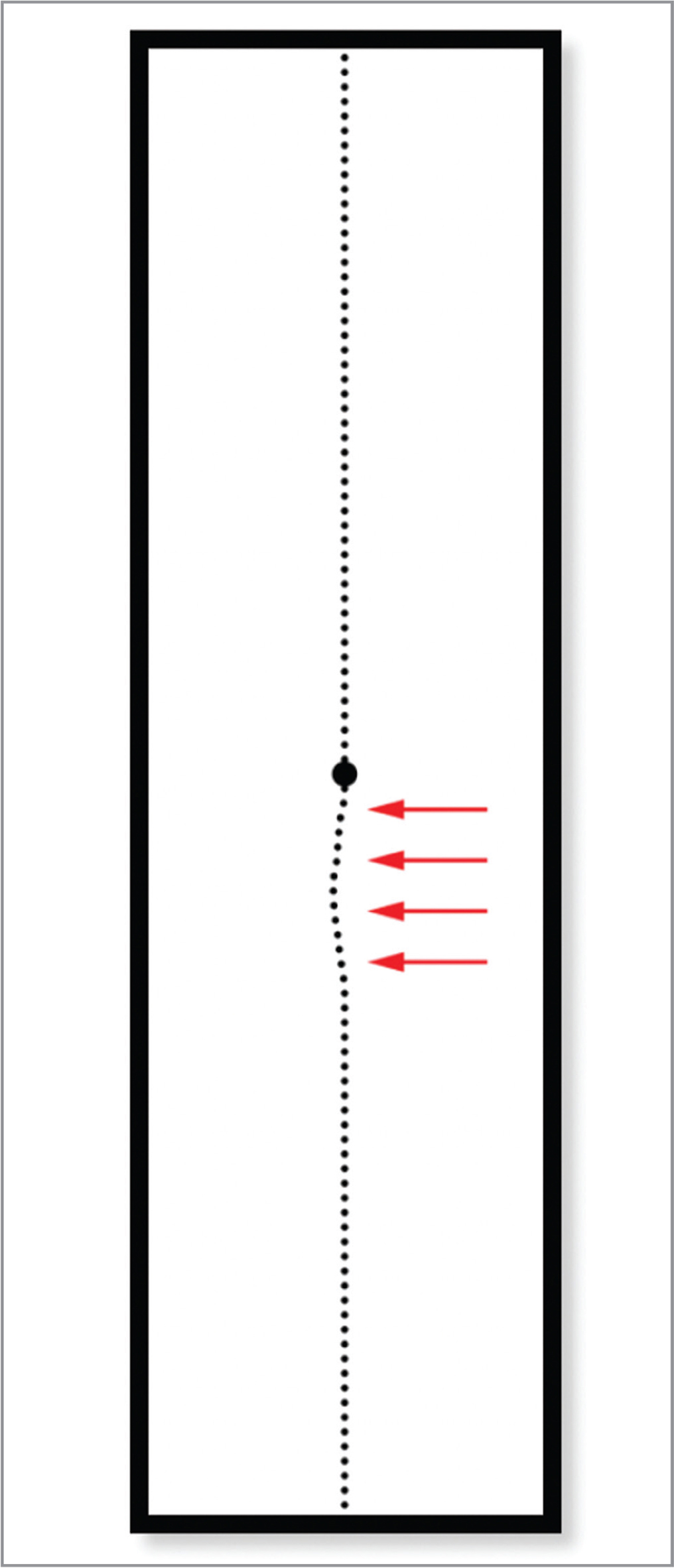 "Screenshot of the adjustments made to a vertical line by a subject with epiretinal membrane of the right eye, after which the subject reported the line appeared ""perfectly straight"" (manipulated area under the curve = 0.5, M-CHARTS score = 0.3). Red arrows are displayed to highlight the adjusted area."