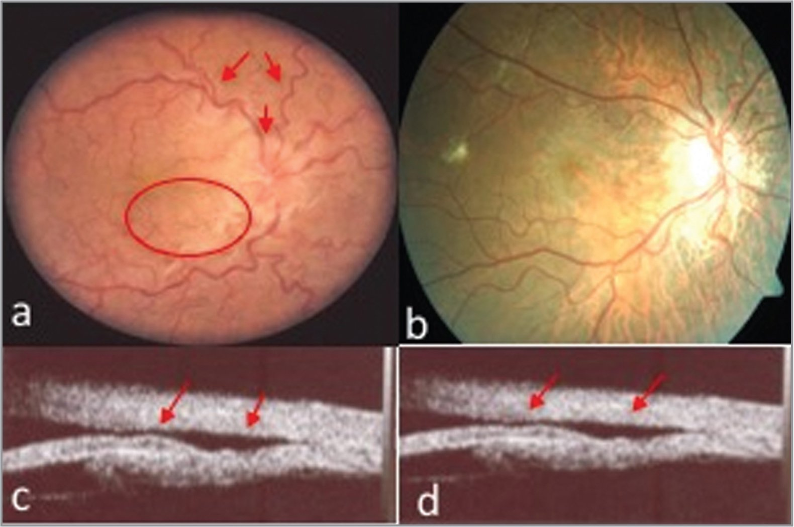 (a, c) Preoperative images. (d, b) Postoperative. Color retinography. (a) Shows hypotonic maculopathy, disc swelling, and vascular tortuosity. (b) The absence of this, signs of hypotony. (c, d) Representative images of cyclodialysis cleft and ciliochoroidal detachment.