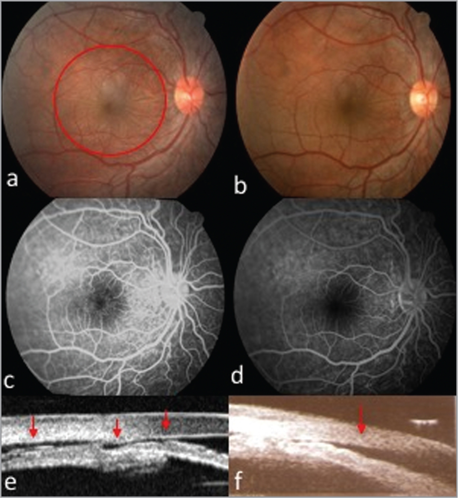 (a, b, e) Preoperative images. (b, d, f) Postoperative images. Color retinography: (a) Shows hypotonic maculopathy; (b) resolution of hypotonic maculopathy. (c, d) Presence and absence of hypotonic maculopathy; ultrabiomicroscopy image shows in (c) cyclodialysis cleft and ciliochoroidal detachment (CCD), and in (d) a CCD.