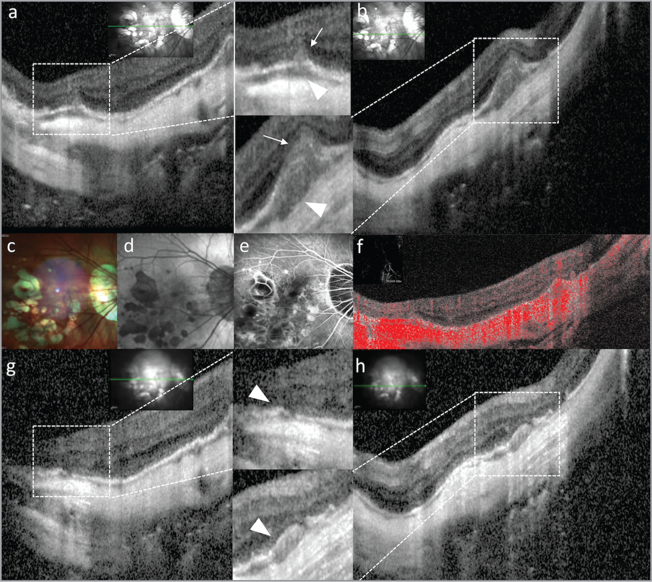 """Multimodal imaging of retinal pigment epithelium (RPE) humps associated with multifocal choroiditis. Structural optical coherence tomography (OCT; a, b) at baseline illustrated multiple RPE humps (arrowheads), some complicated by """"volcano-like"""" apertures of the RPE (arrows). The RPE apertures were associated with vertical hyperreflective material in the outer nuclear layer and in the outer plexiform layer. Multicolor imaging (c) and fundus autofluorescence (d) revealed multiple patchy areas of RPE atrophy and lacquer cracks; fluorescein angiography (e) showed hyperfluorescence due to window effect or late staining, and minimal leakage of the dye corresponding to the RPE lesions. OCT angiography (f) excluded the presence of associated choroidal neovascularization. One month after treatment with systemic prednisone, OCT (g, h) showed resolution of the inflammatory lesions over the RPE humps (arrowheads) and reduction of choroidal thickness."""