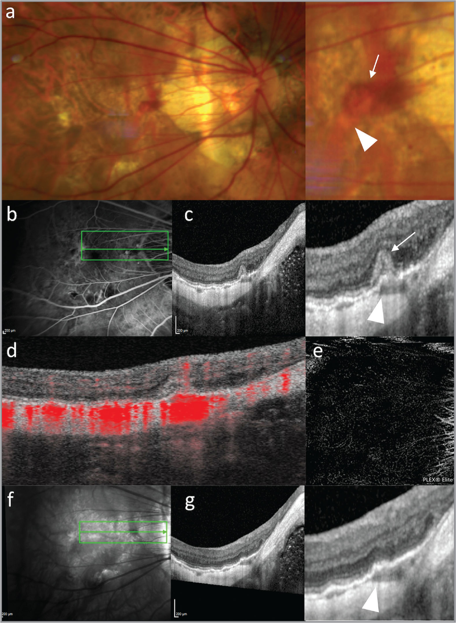 Multimodal imaging of retinal pigment epithelium (RPE) humps associated with myopic simple bleeding. Fundus photography illustrated the presence of a macular hemorrhage (arrow) over the course of a large choroidal vessel (arrowhead). The hemorrhage did not show important leakage on fluorescein angiography (b) and corresponded to subretinal hyperreflective material on structural optical coherence tomography (OCT) (c; arrow), whereas the underlying large choroidal vessel corresponded to an RPE hump (c; arrowhead). B-scan (d) and en face (e) OCT angiography excluded the presence of choroidal neovascularization. After 2 weeks, near-infrared fundus reflectance (f) and OCT (g) showed complete resolution of the macular hemorrhage over the RPE hump (arrowhead).