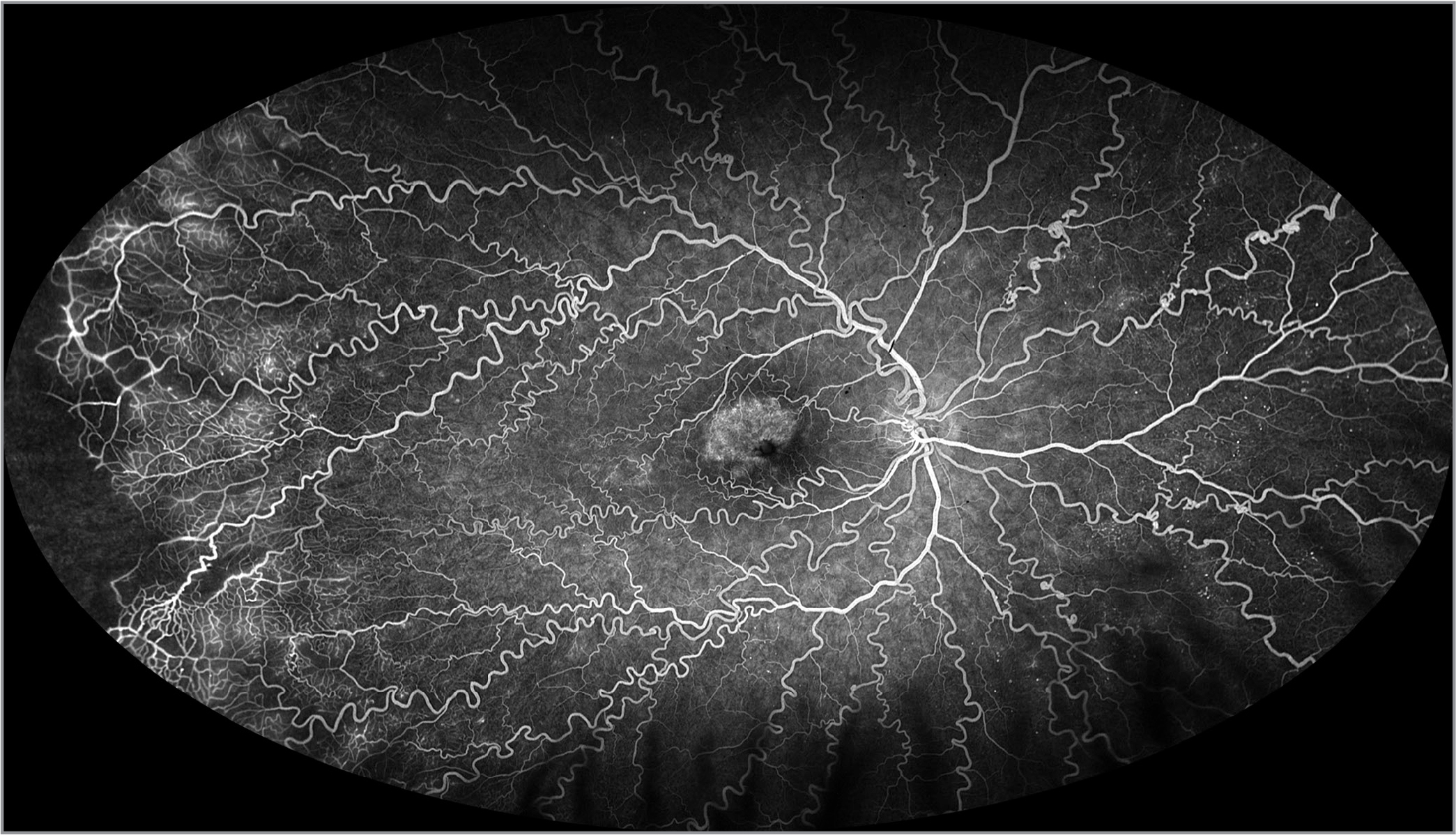 Ultra-widefield fluorescein angiography demonstrates scattered microaneurysms, peripheral capillary telangiectasia and nonperfusion, and macular leakage.
