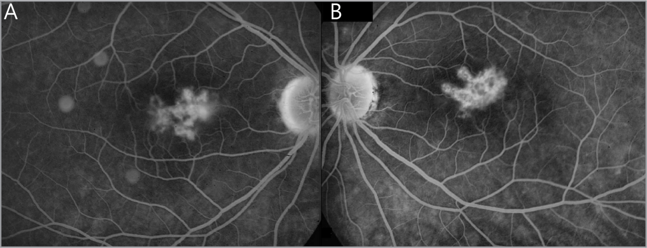 The initial fluorescein angiography of the right (A) and left (B) eye in Patient B shows hyperfluorescent flecks bilaterally in the macula with leakage in the right eye in August 2002.
