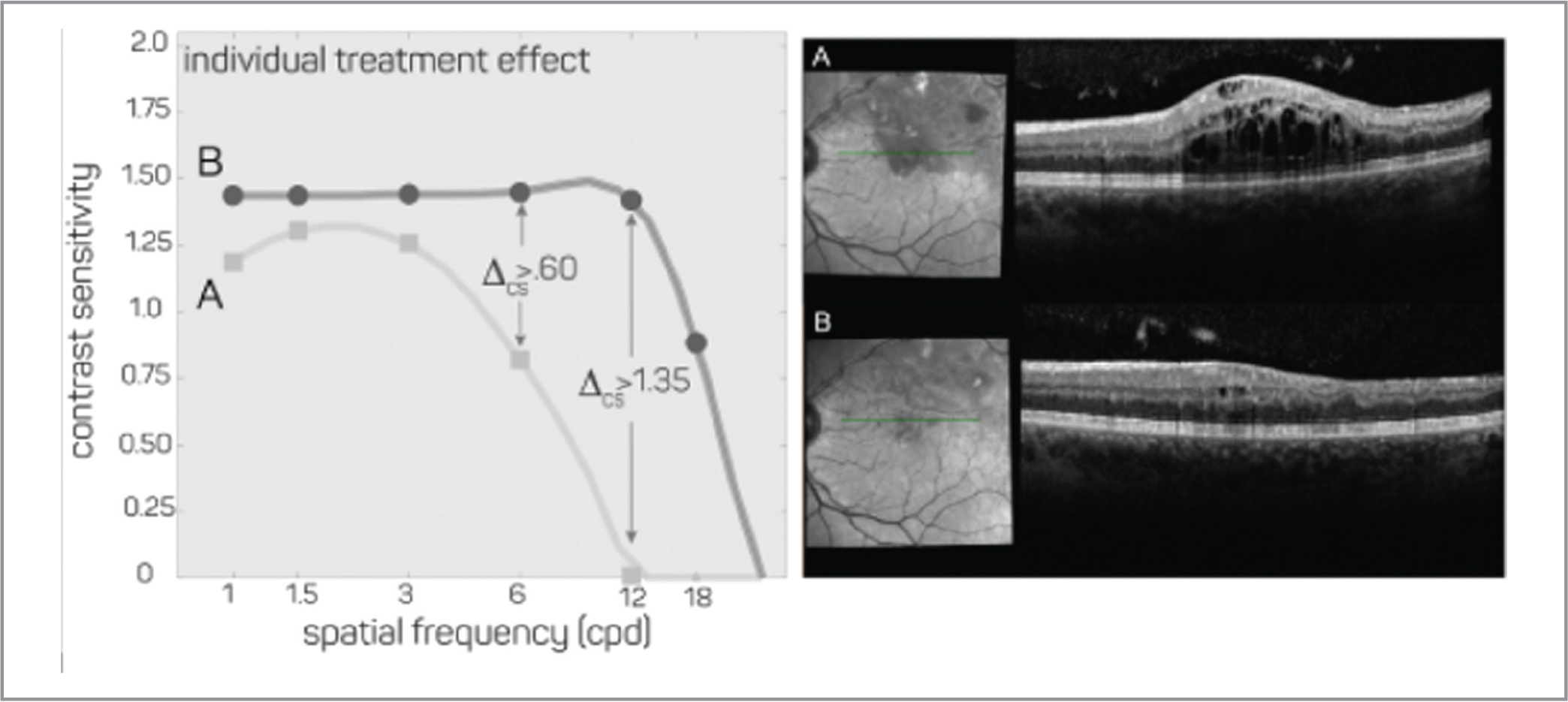 Correspondence of structural and functional improvements in one patient. Contrast sensitivity (CS) functions and optical coherence tomography images are presented for one eye showing substantial fluid resolution following an anti-vascular endothelial growth factor (VEGF) injection. Visual acuity (VA) testing demonstrated a treatment effect that was less than 2 lines: (from 20/30+2 to 20/20). Left: CS functions corresponding to before (A) and after (B) treatment injection. Relative to VA gains (< 0.20 logMAR), the CS gains are substantial and meaningful with > 0.60 logCS improvement for frequencies in the range of cycles per degree (cpd) to 18 cpd. Right: Significant macular edema present in treatment-naive eye of one patient (A) and near resolution of macular edema following anti-VEGF treatment (B).