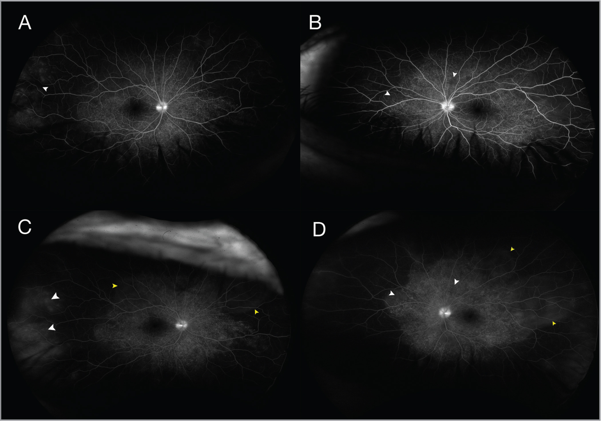 Fluorescein angiography showing optic disc staining, typical pinpoint staining, and larger hypofluorescent lesions in the early phases (A: right eye, B: left eye), which become hyperfluorescent in the late phase (white arrowheads), with multi-lobulated pooling of dye in the areas of exudative retinal detachments in both eyes (yellow arrowheads) (C: right eye, D: left eye).