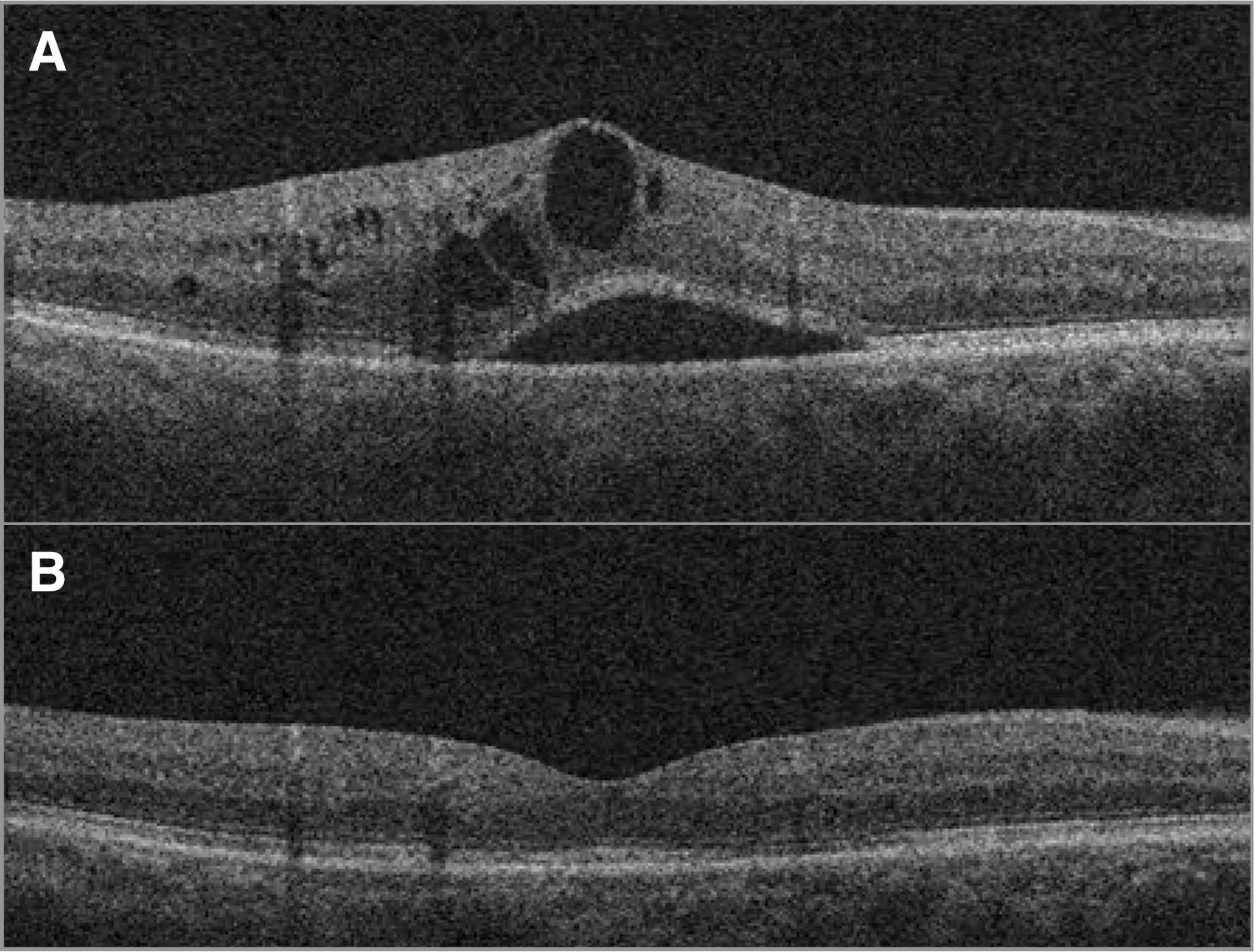 (a) Postoperative cystoid macular edema prior to treatment, with cystic changes throughout the retinal layers and in the subretinal space. (b) Same patient 14 weeks after sub-Tenon's triamcinolone acetonide, demonstrating full resolution of edema and normalization of foveal contour.